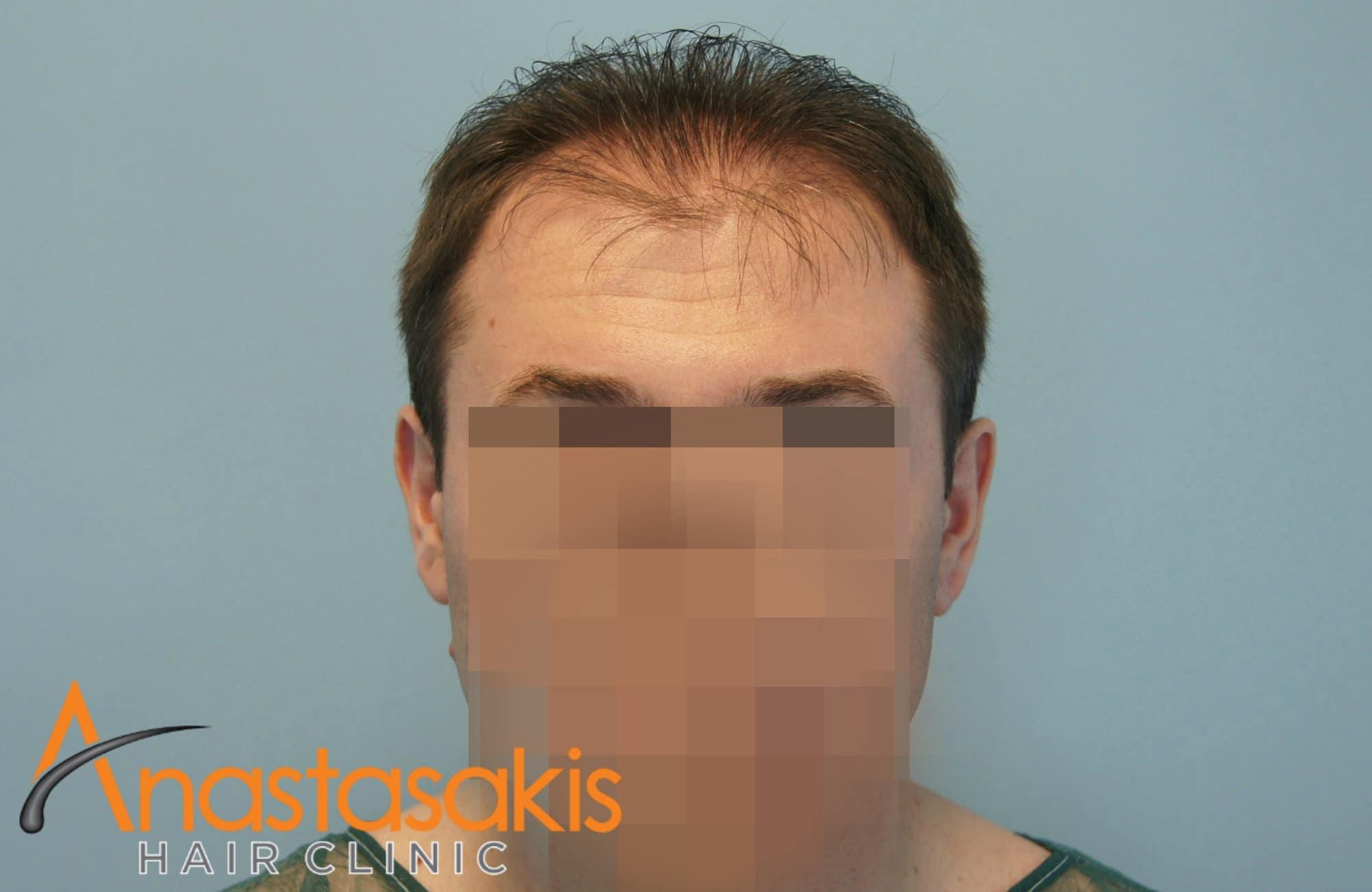 ανφας ασθενους πριν τη μεταμοσχευση μαλλιων με fue με 1700 fus