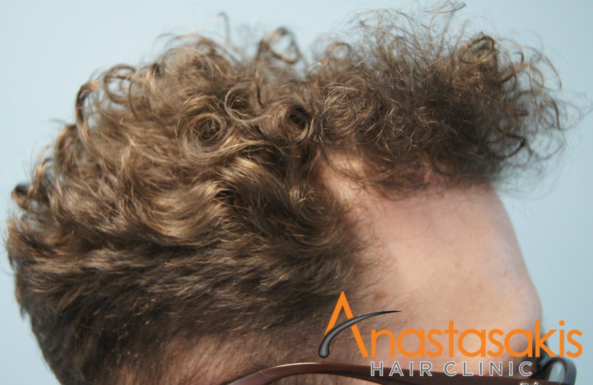αριστερο προφιλ ασθενους μετα τη μεταμοσχευση μαλλιων με 2300 fus