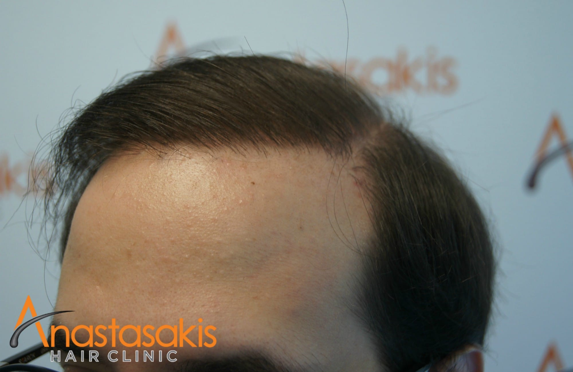 δεξι προφιλ ασθενους μετα τη μεταμοσχευση μαλλιων με 3500 fus