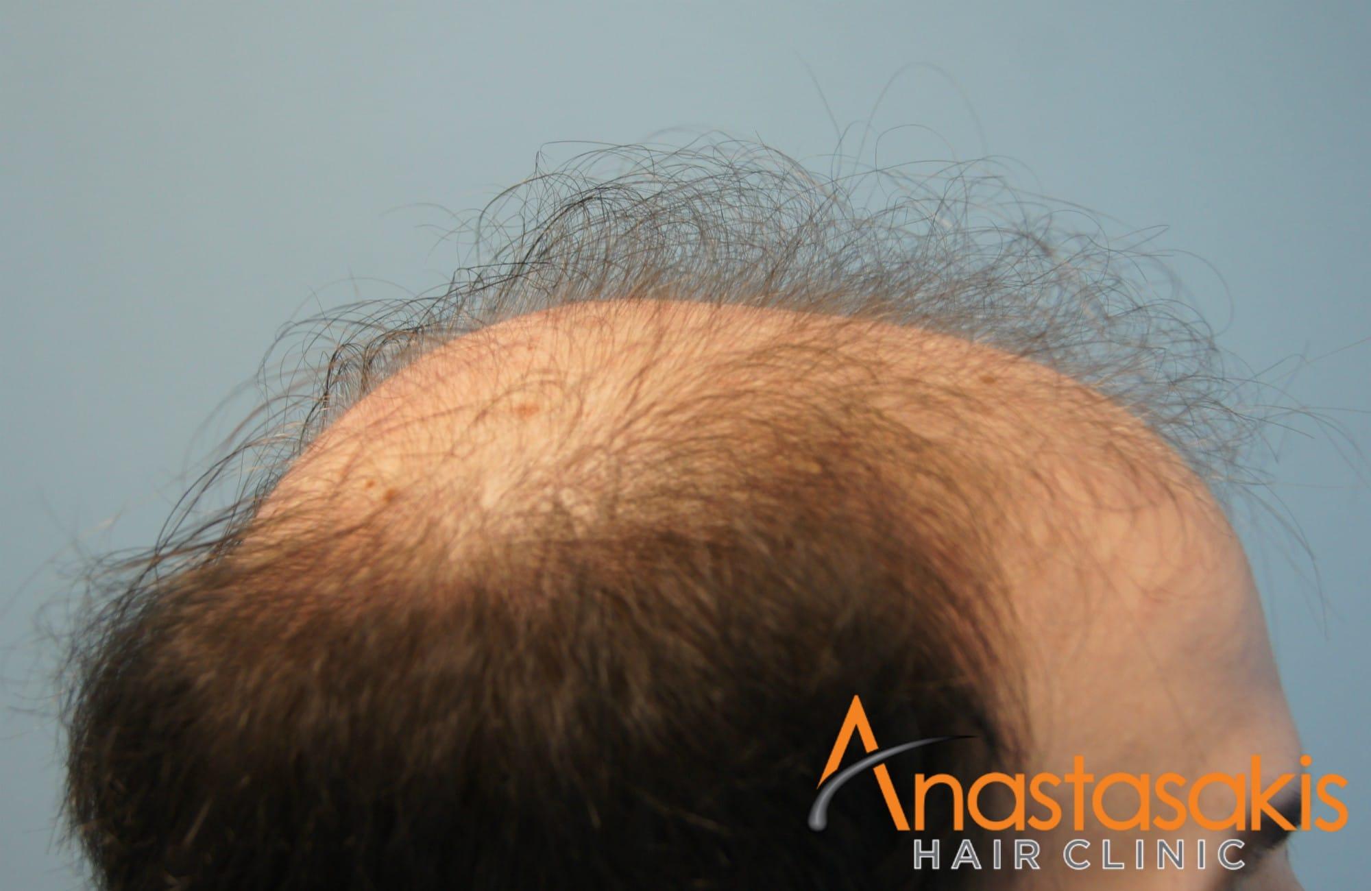 αριστερο προφιλ ασθενους πριν τη μεταμοσχευση μαλλιων με 3500 fus