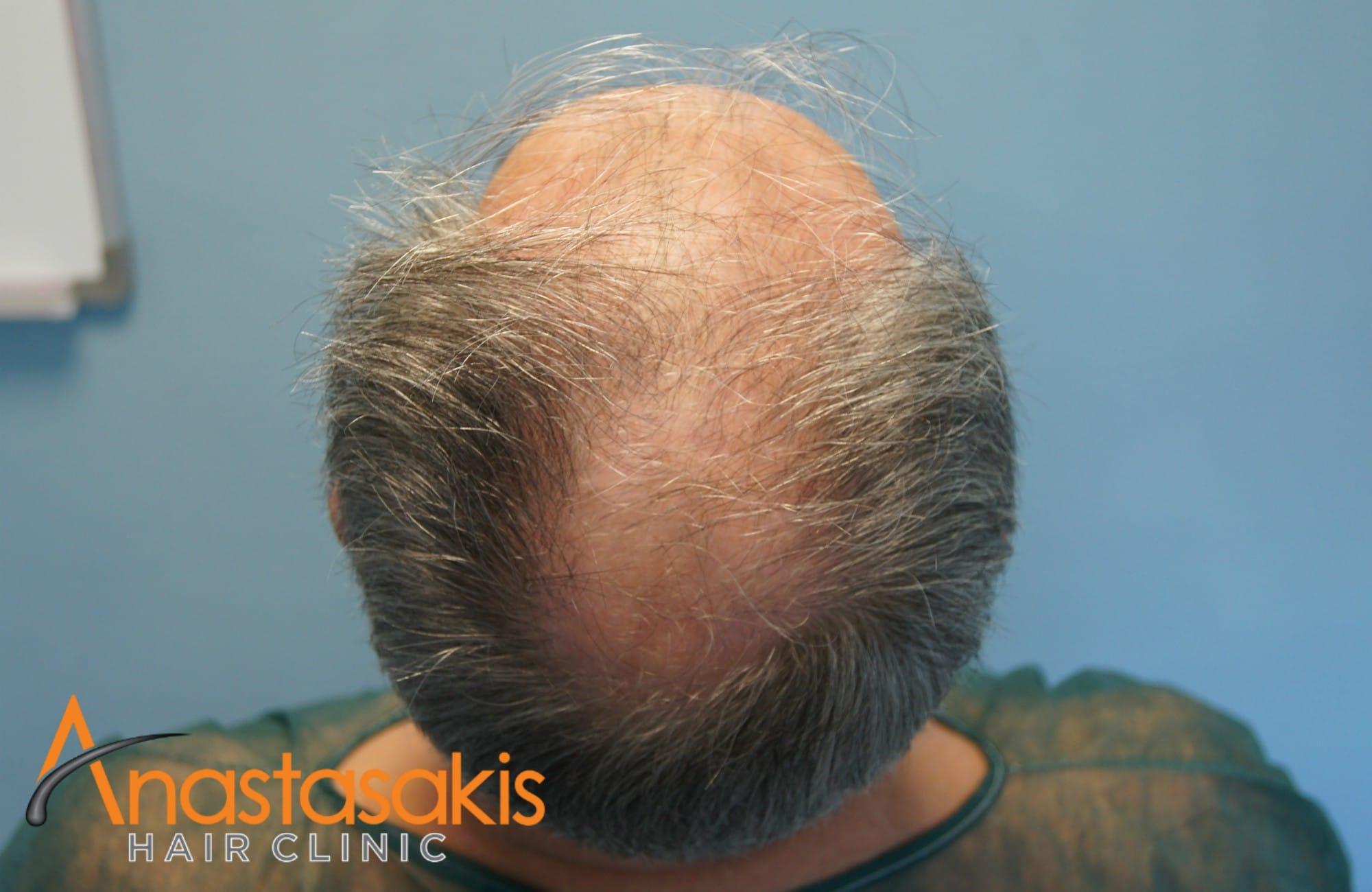 birdview ασθενους πριν τη μεταμοσχευση μαλλιων με 3650 fus
