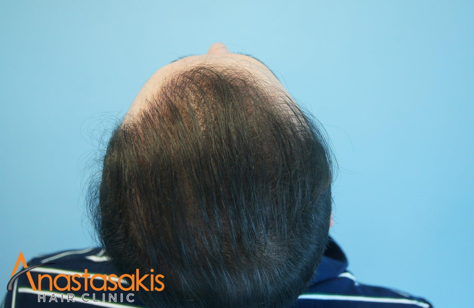 κορυφη ασθενους μετα τη μεταμοσχευση μαλλιων με 3000 fus