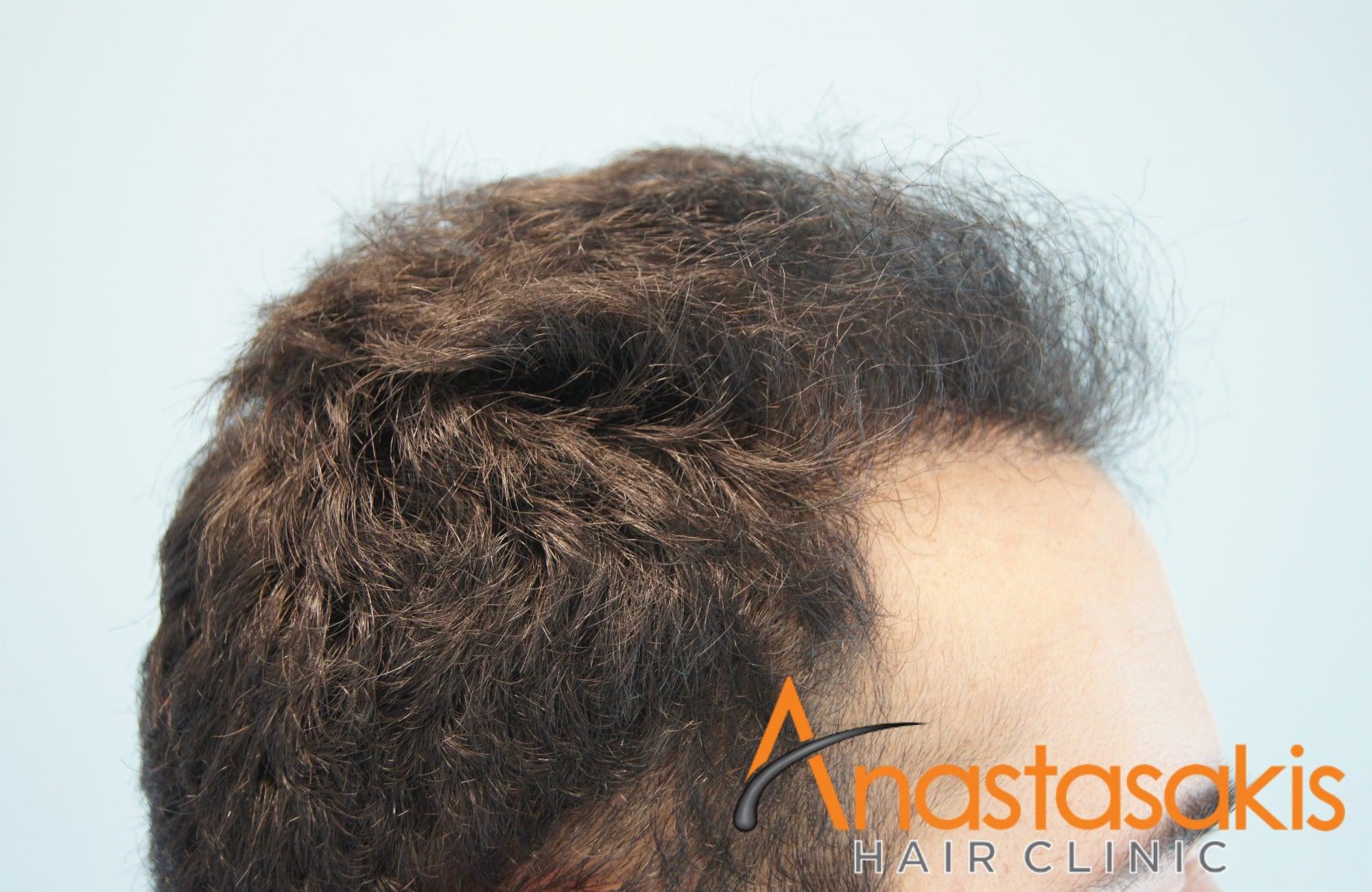 αριστερο προφιλ ασθενους μετα τη μεταμοσχευση μαλλιων με 1623 fus