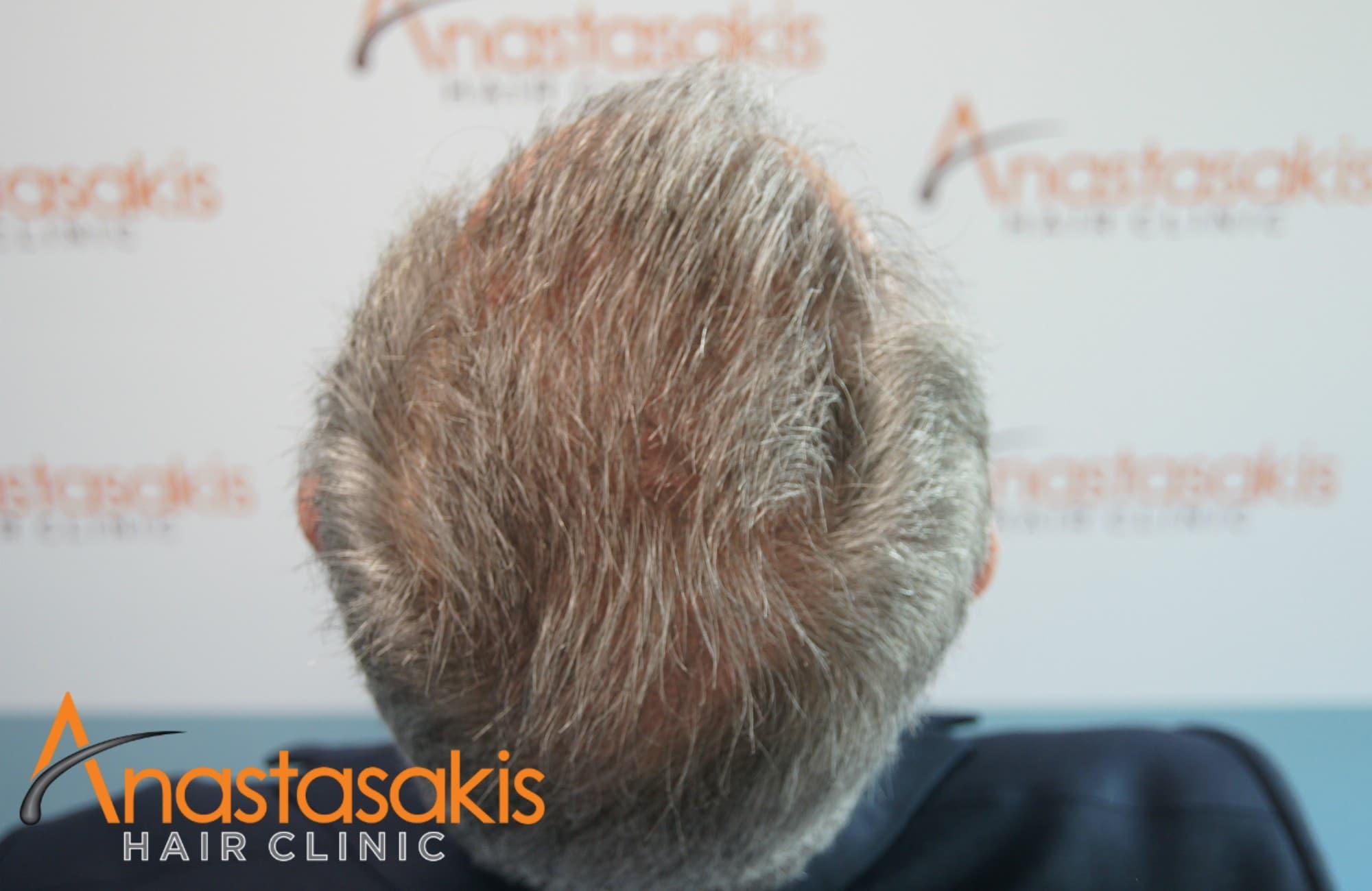birdview ασθενους μετα τη μεταμοσχευση μαλλιων με 3650 fus