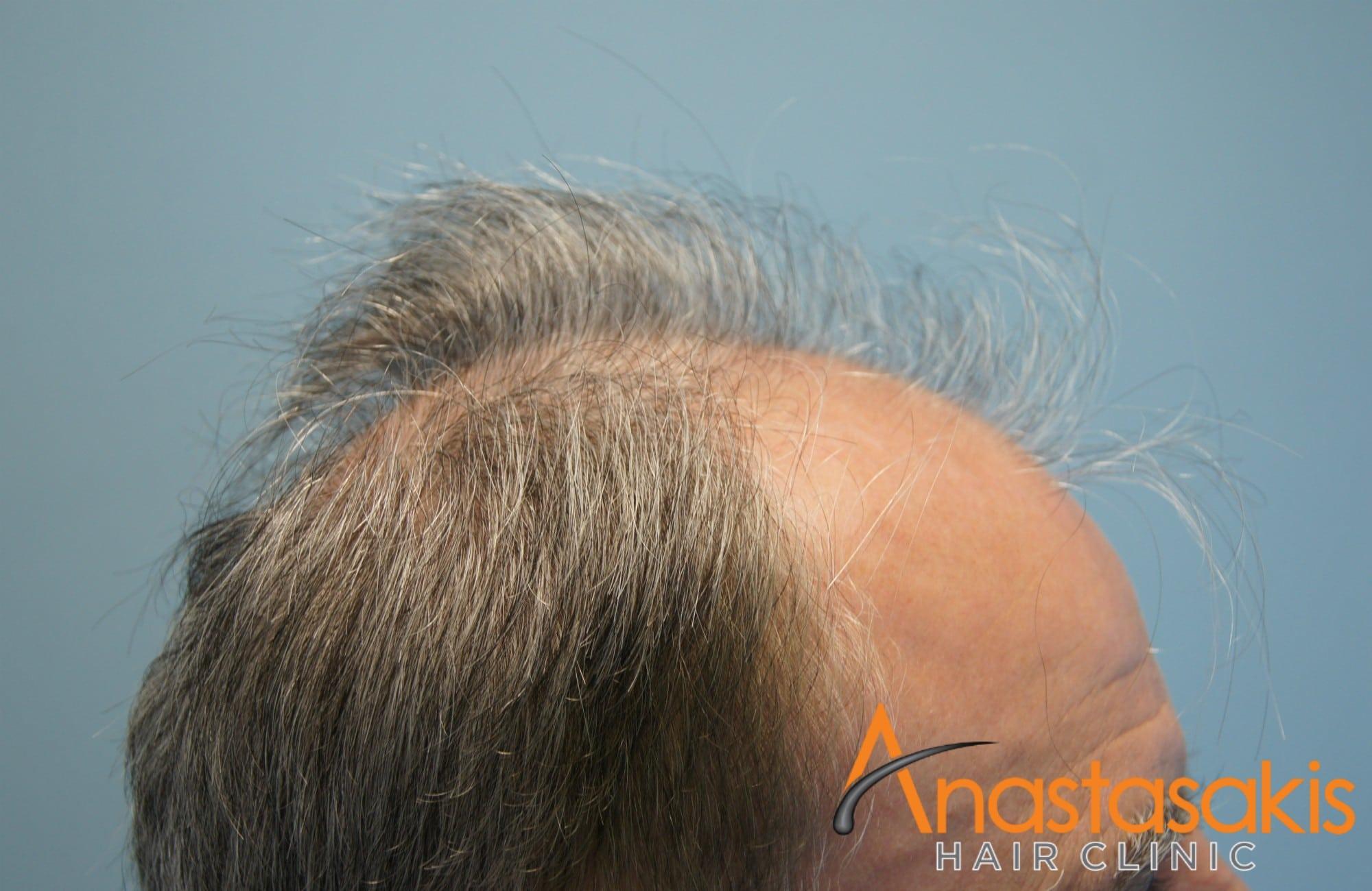 αριστερο προφιλ ασθενους πριν τη μεταμοσχευση μαλλιων με 3650 fus