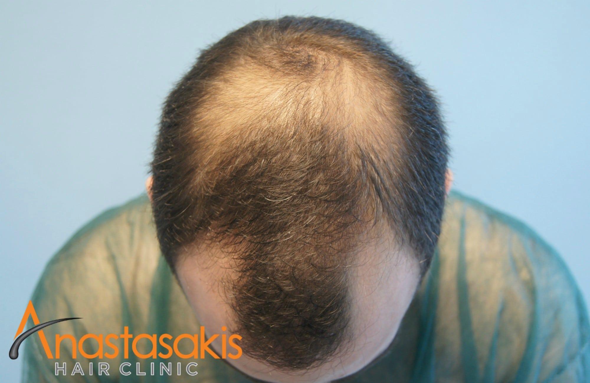 πρόσθια περιοχή ασθενούς πριν τη μεταμοσχευση μαλλιων με 1500 fus