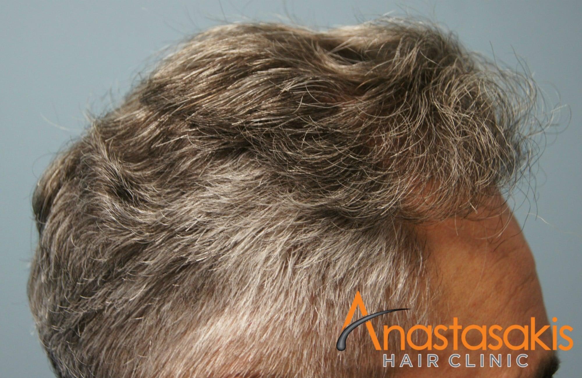 αριστερό προφίλ ασθενους μετά τη μεταμόσχευσή μαλλιών με 3500 fus