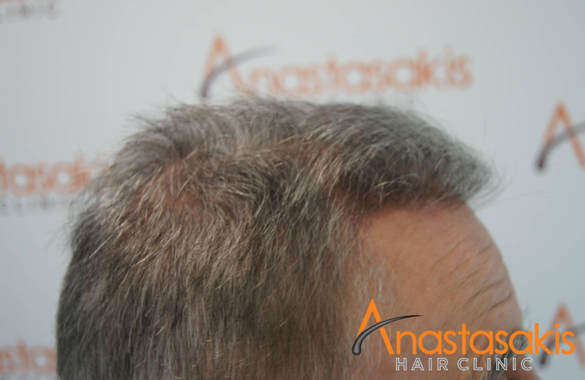 αριστερο προφιλ ασθενους μετα τη μεταμοσχευση μαλλιων με 3650 fus