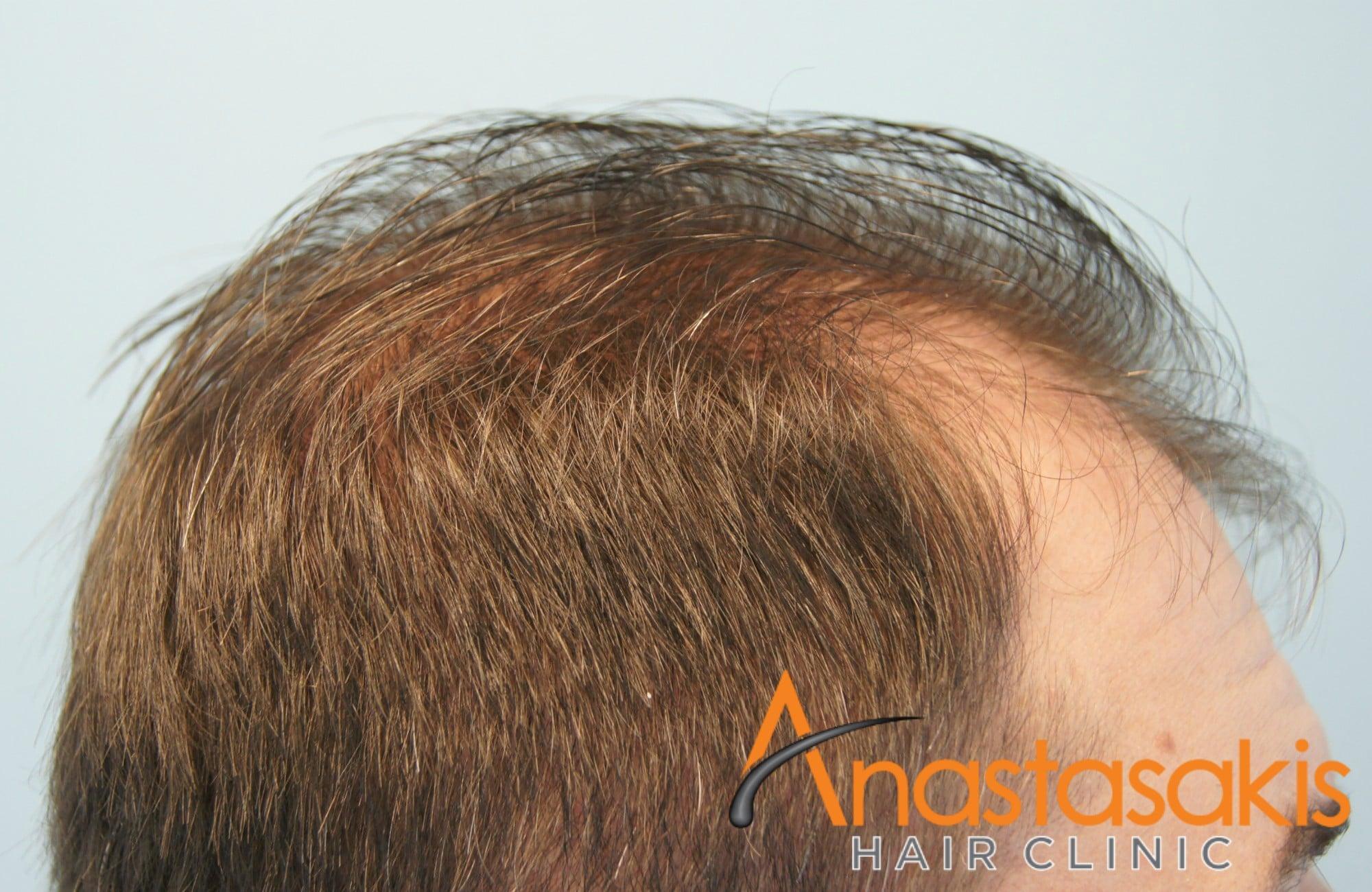 αριστερο προφιλ ασθενους πριν τη μεταμοσχευση μαλλιων με fue με 1700 fus 1