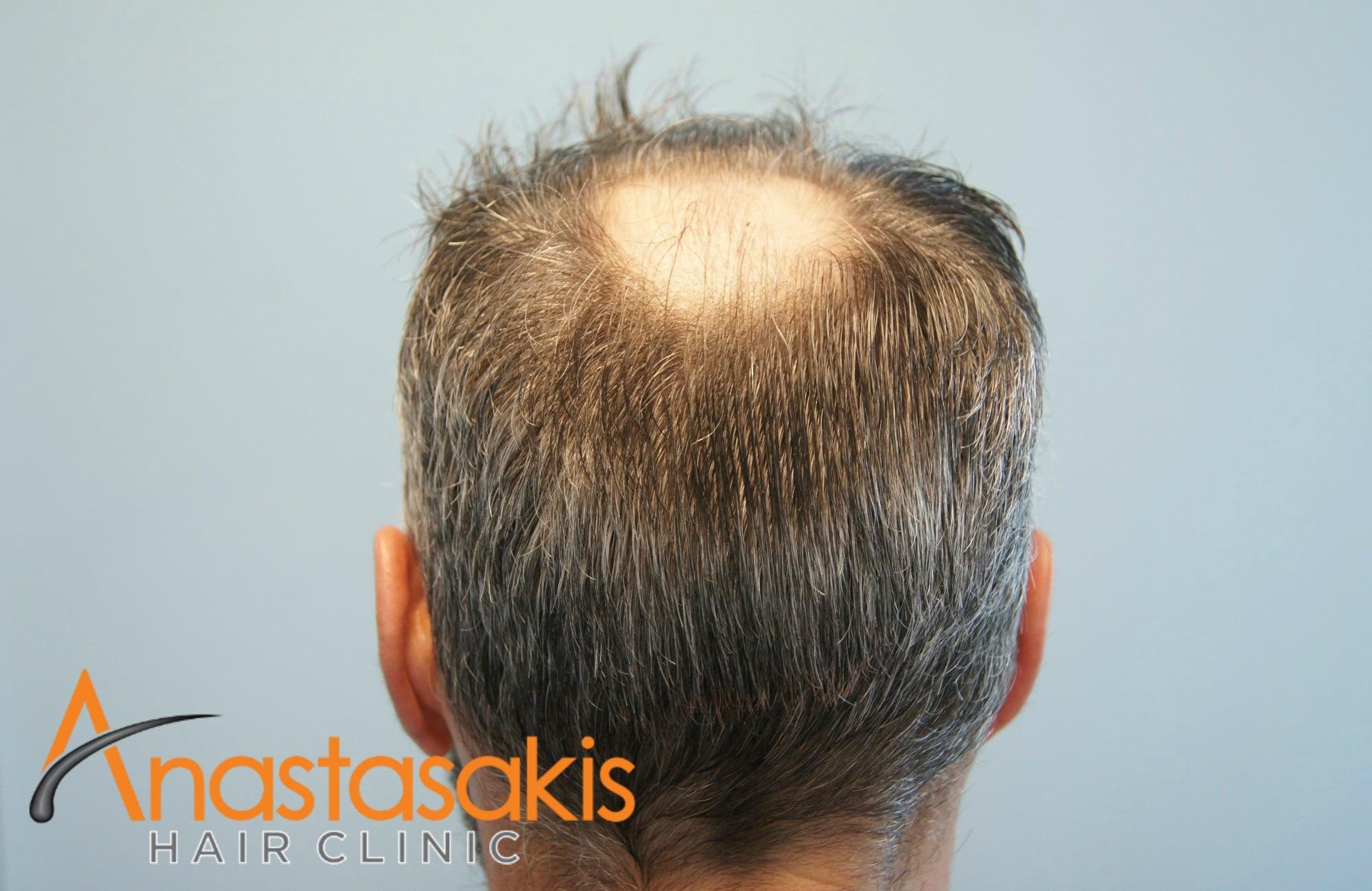 κορυφή ασθενους πριν τη μεταμόσχευσή μαλλιών με 3500 fus