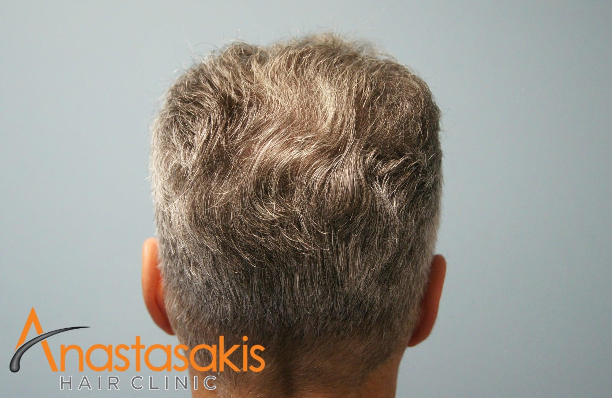κορυφή ασθενους μετά τη μεταμόσχευσή μαλλιών με 3500 fus