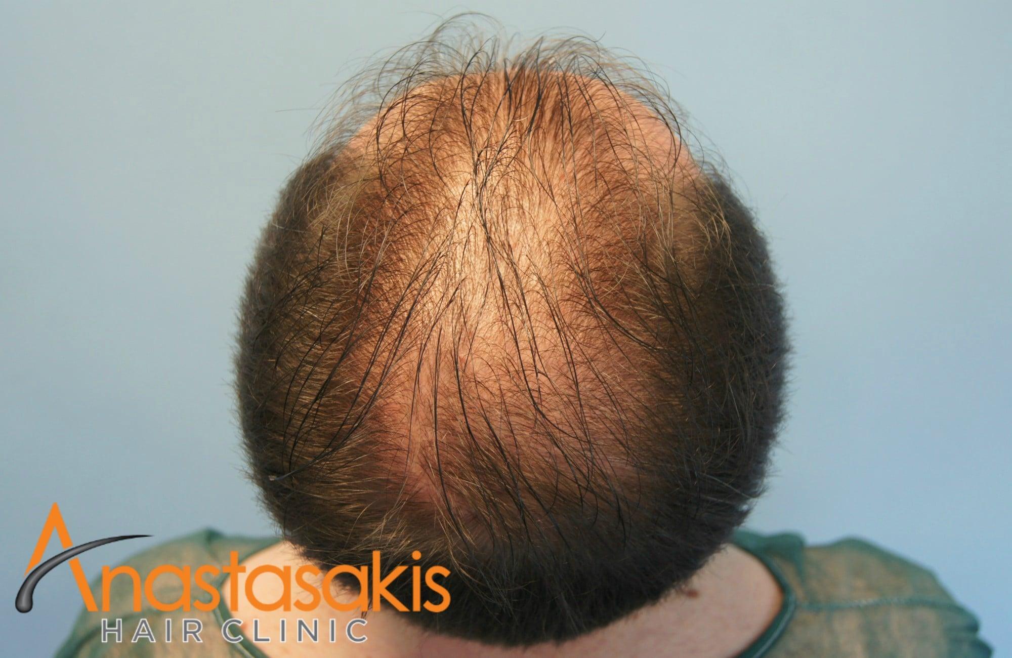 birdview ασθενους πριν τη μεταμοσχευση μαλλιων με fue με 1700 fus
