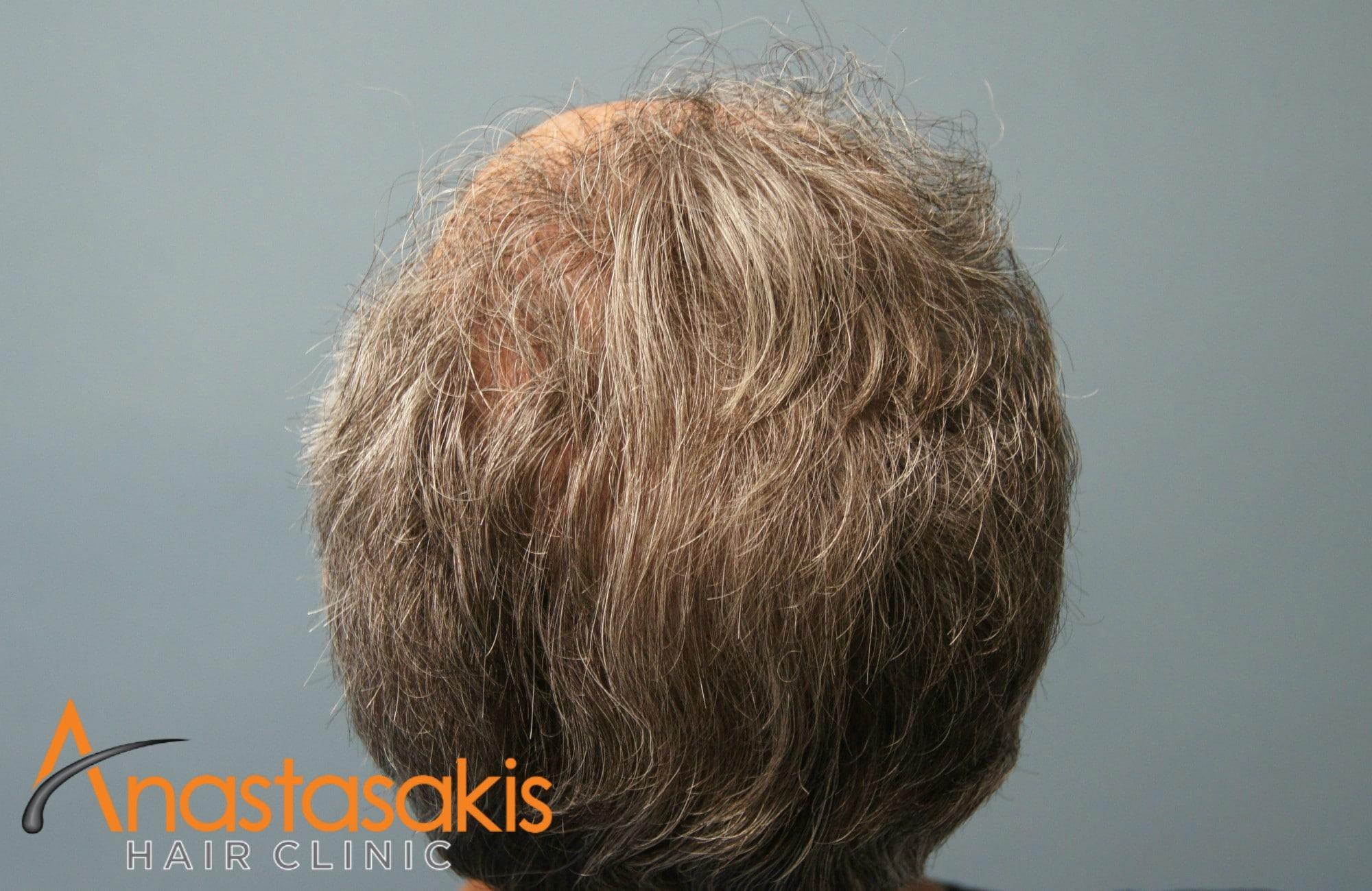 birdview ασθενούς μετά τη μεταμόσχευση μαλλιών με 3500 fus