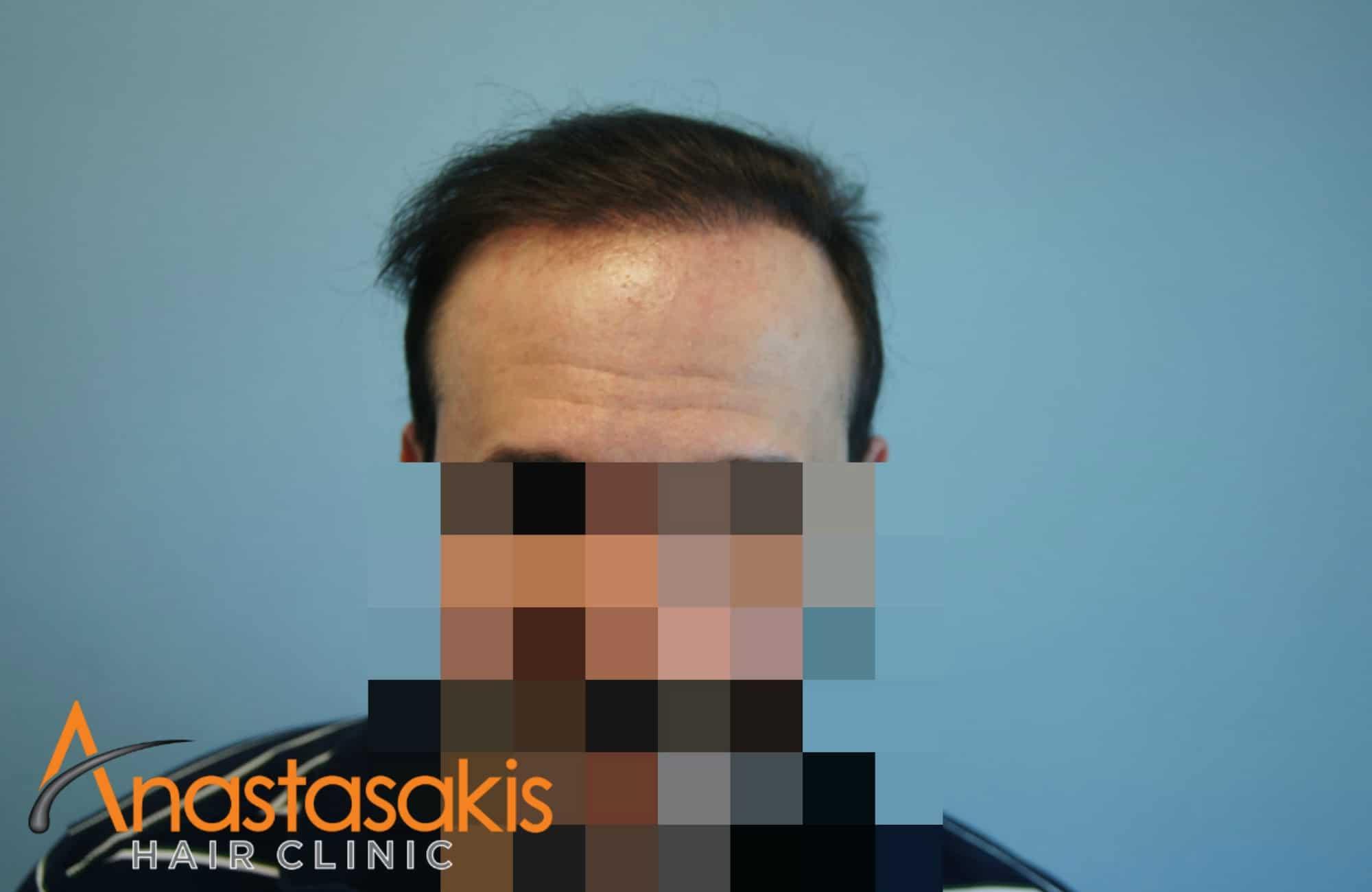 fullface ασθενους μετα τη μεταμοσχευση μαλλιων με 3000 fus