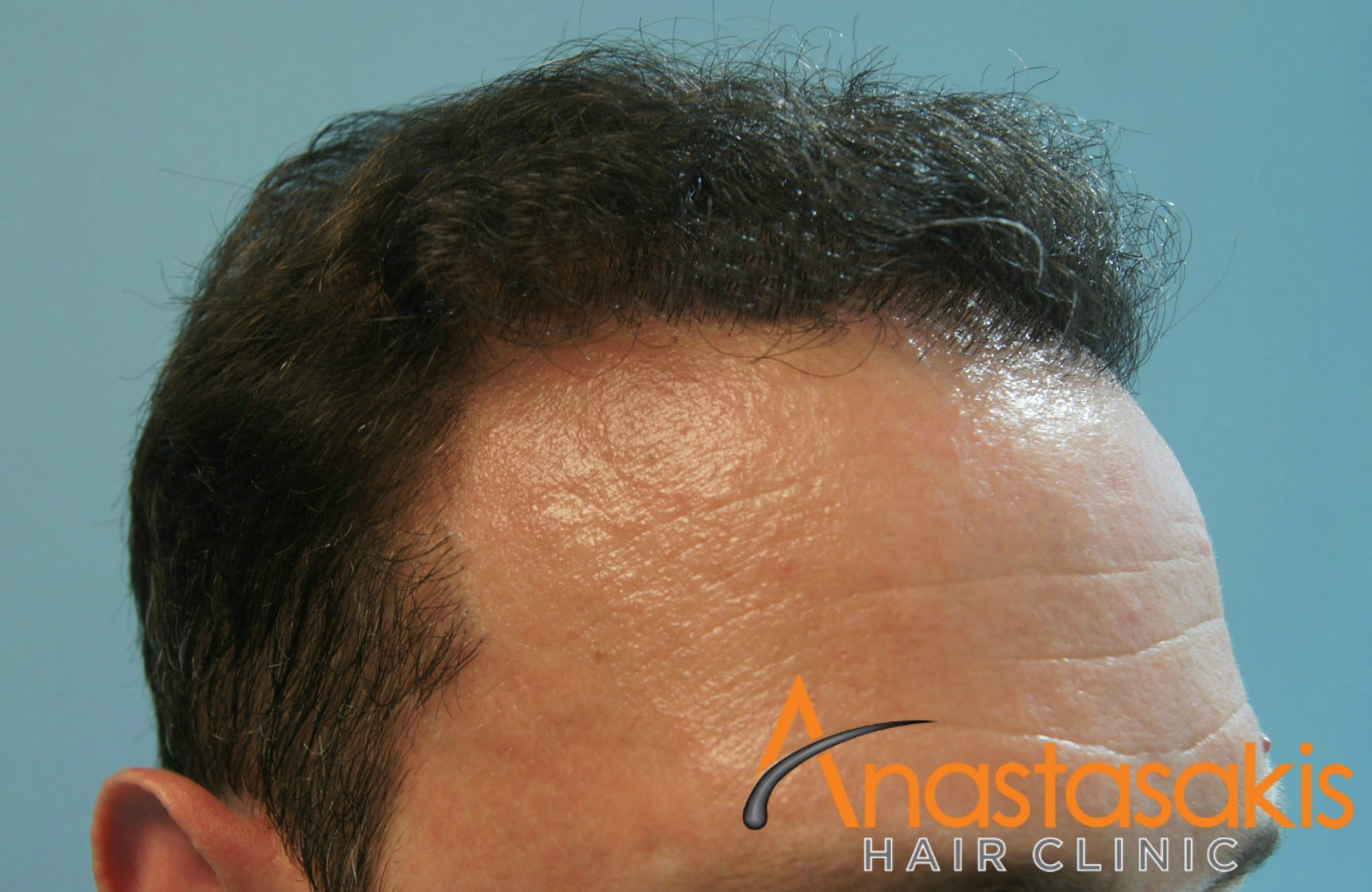 αριστερο προφιλ 2 ασθενους μετα τη μεταμοσχευση μαλλιων με 3000 fus