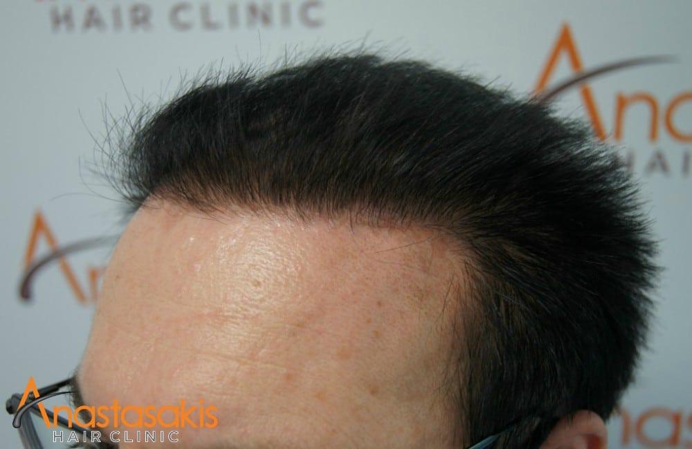 δεξί προφίλ 2 ασθενους μετά τη μεταμόσχευσή μαλλιών με 2100 fus