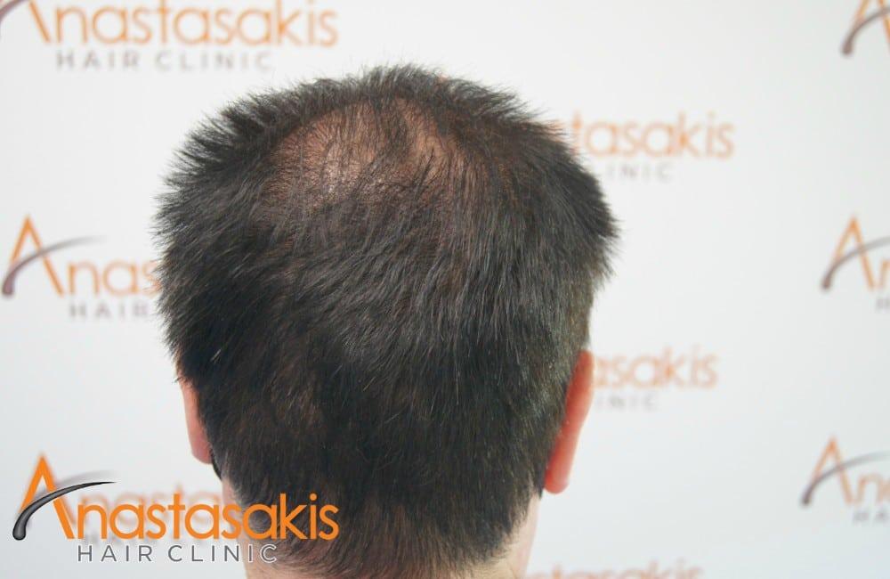 κορυφή ασθενους μετά τη μεταμόσχευσή μαλλιών με με 2100 fus