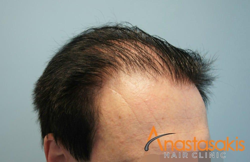 αριστερό προφίλ 2 ασθενους πριν τη μεταμόσχευσή μαλλιών με 2100 fus