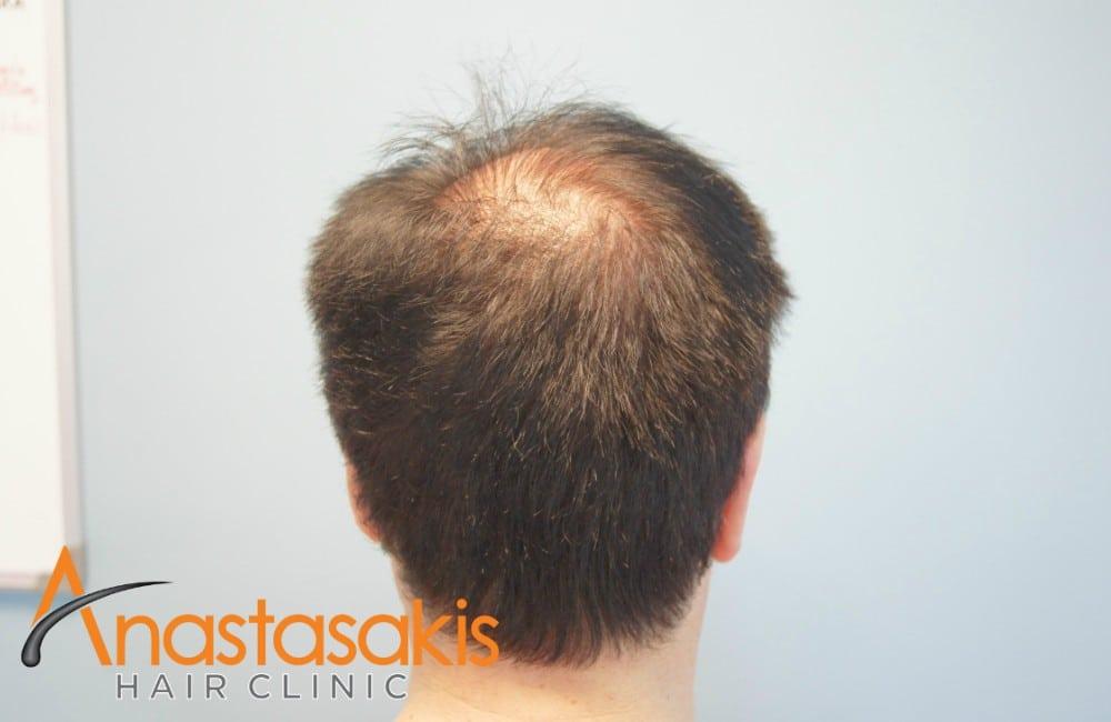 κορυφή ασθενους πριν τη μεταμόσχευσή μαλλιών με με 2100 fus