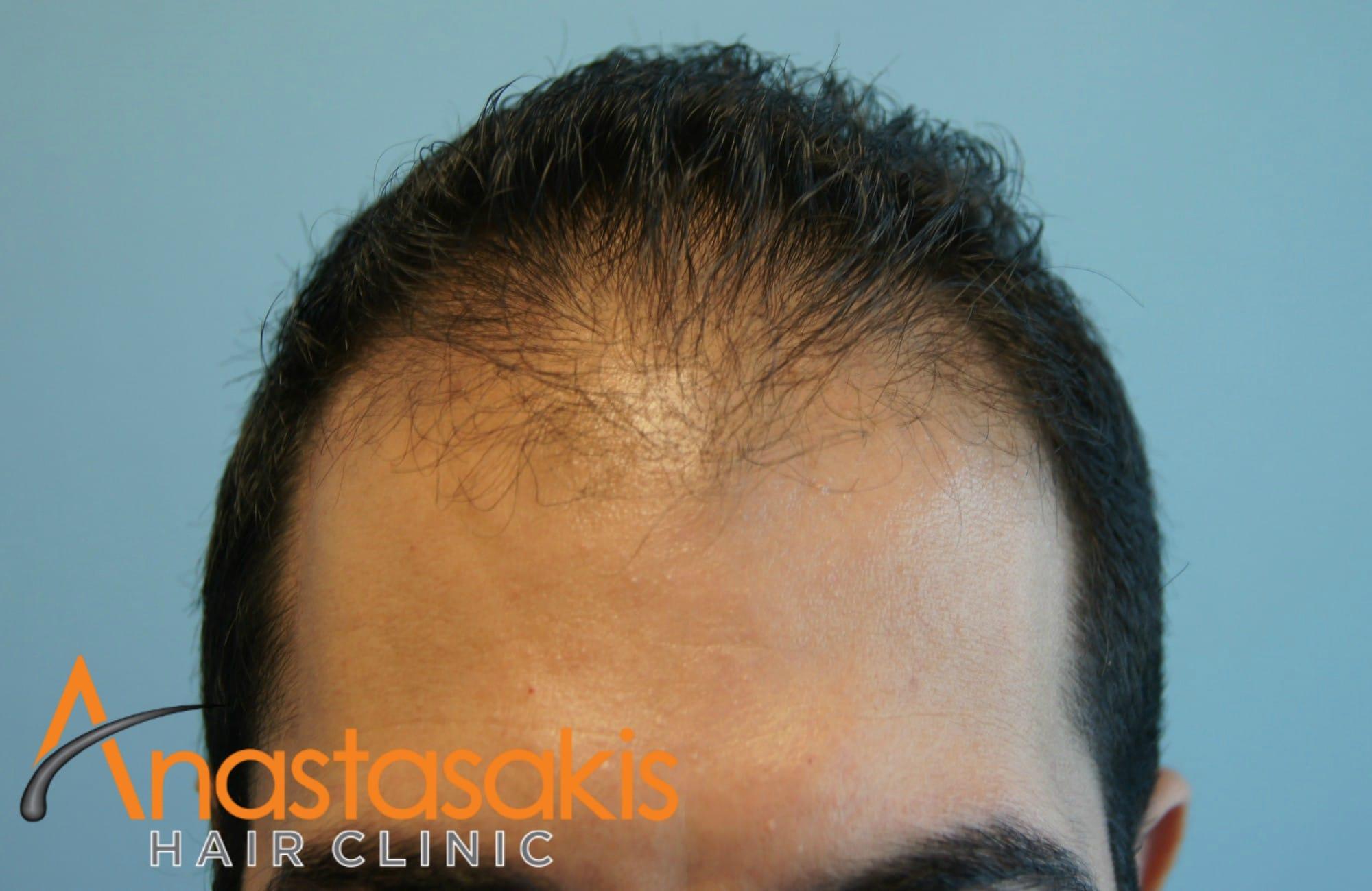 hairline ασθενους πριν τη μεταμοσχευση μαλλιων με 1200 fus
