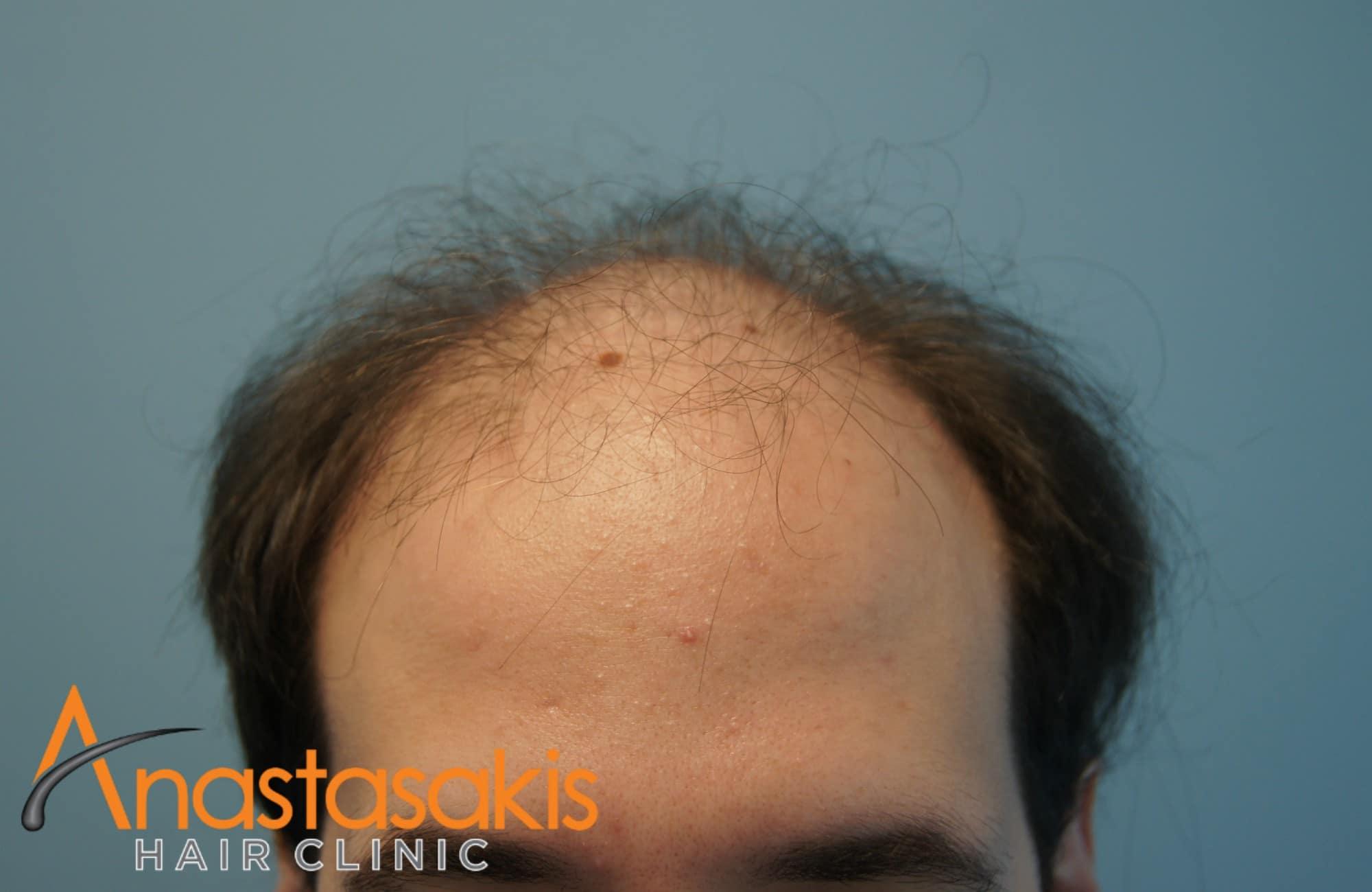 hairline ασθενους πριν τη μεταμοσχευση μαλλιων με 3500 fus