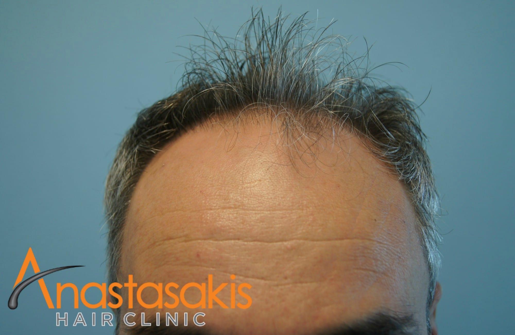 hairline ασθενους πριν τη μεταμόσχευσή μαλλιών με 3500 fus