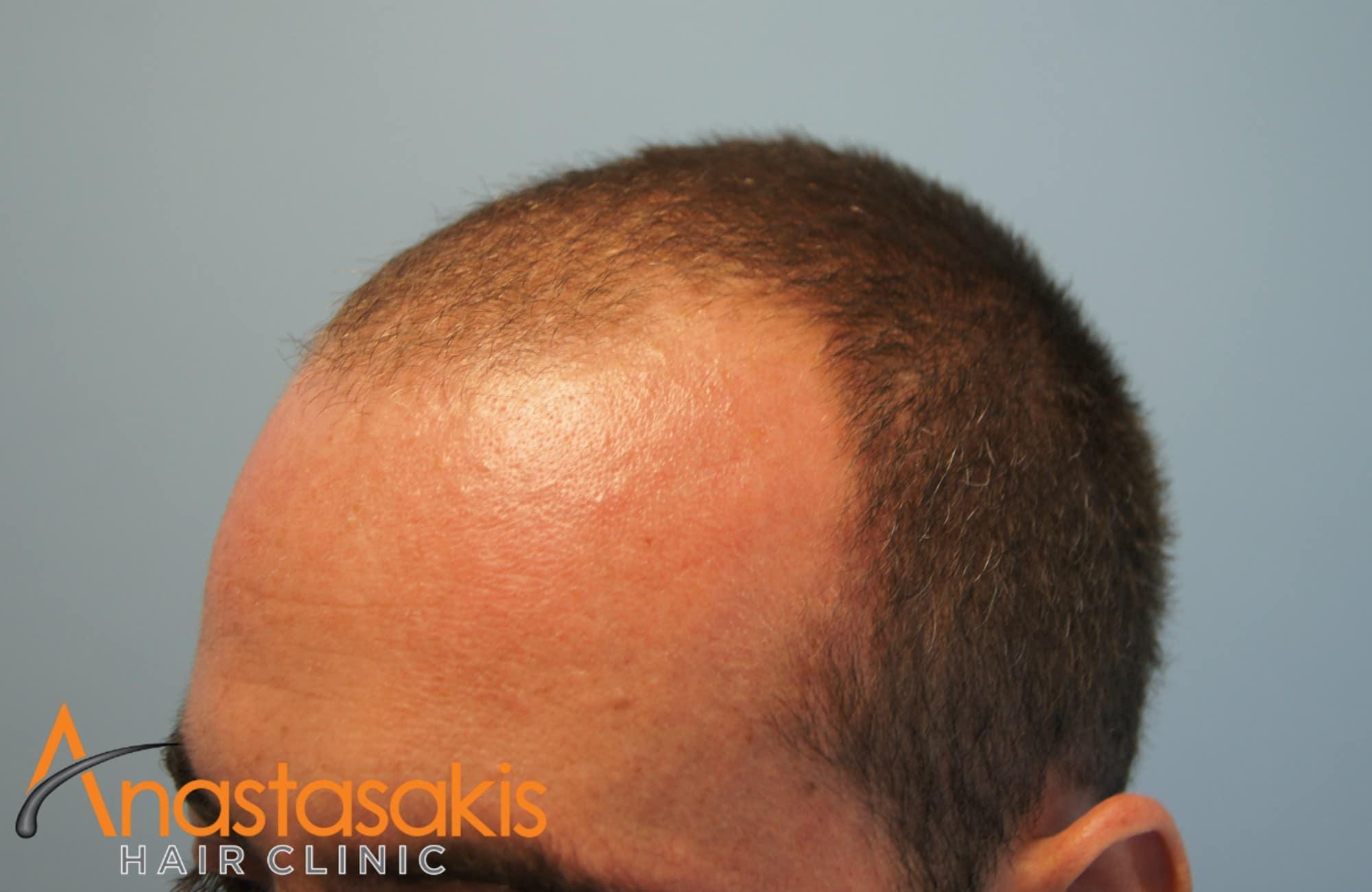 ασθενης πριν τη μεταμοσχευση μαλλιων με 2000fus δεξι προφιλ 2