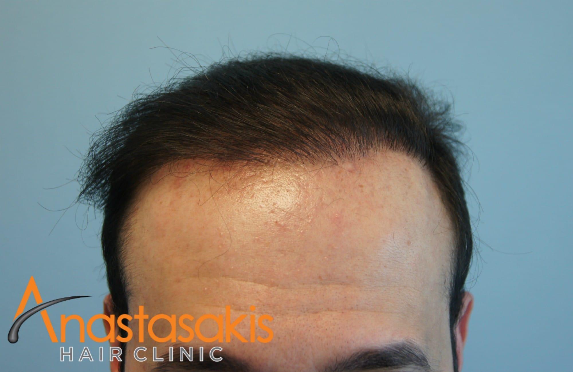hairline ασθενους μετα τη μεταμοσχευση μαλλιων με 3000 fus