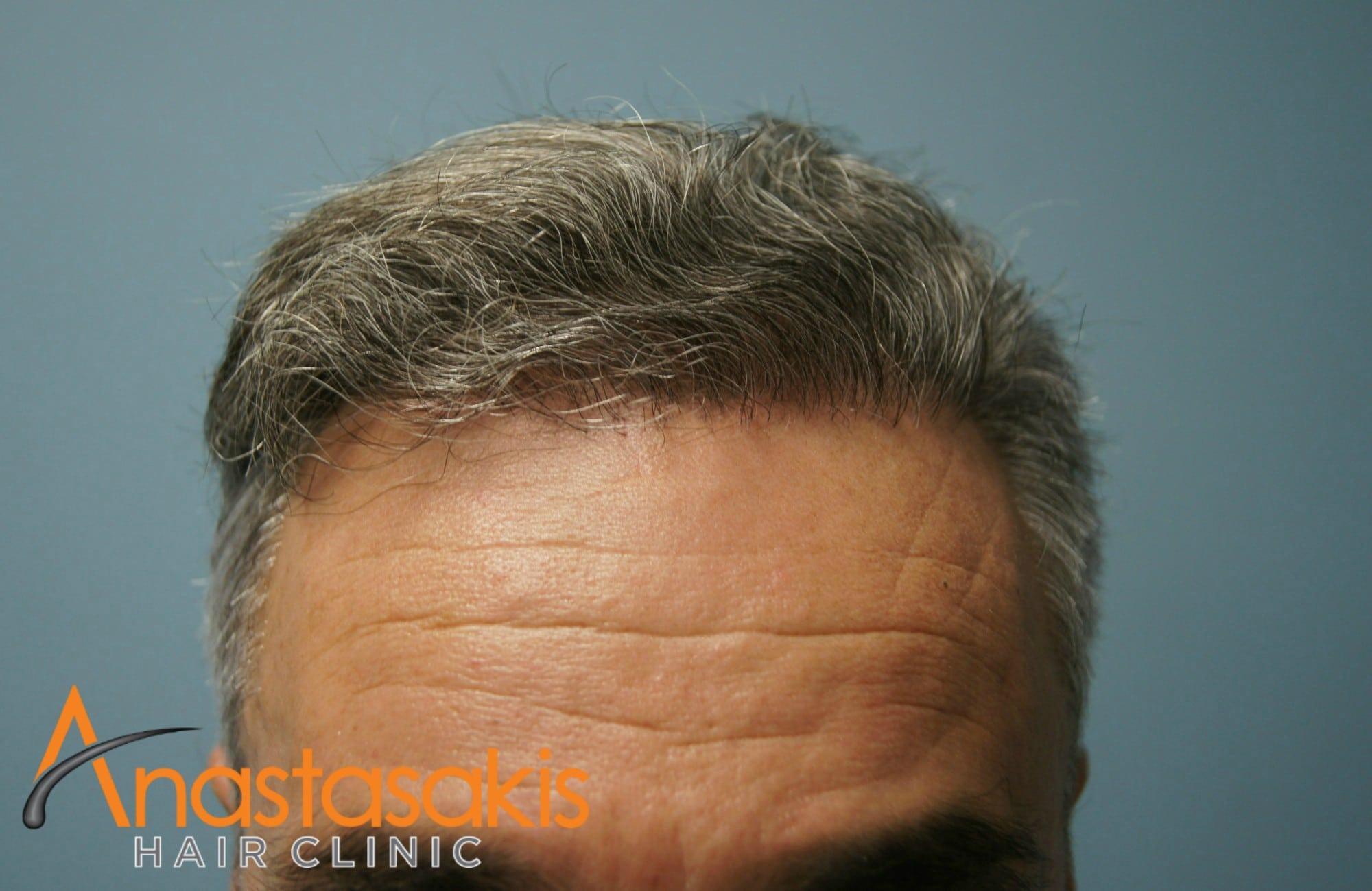 hairline ασθενους μετά τη μεταμόσχευσή μαλλιών με 3500 fus