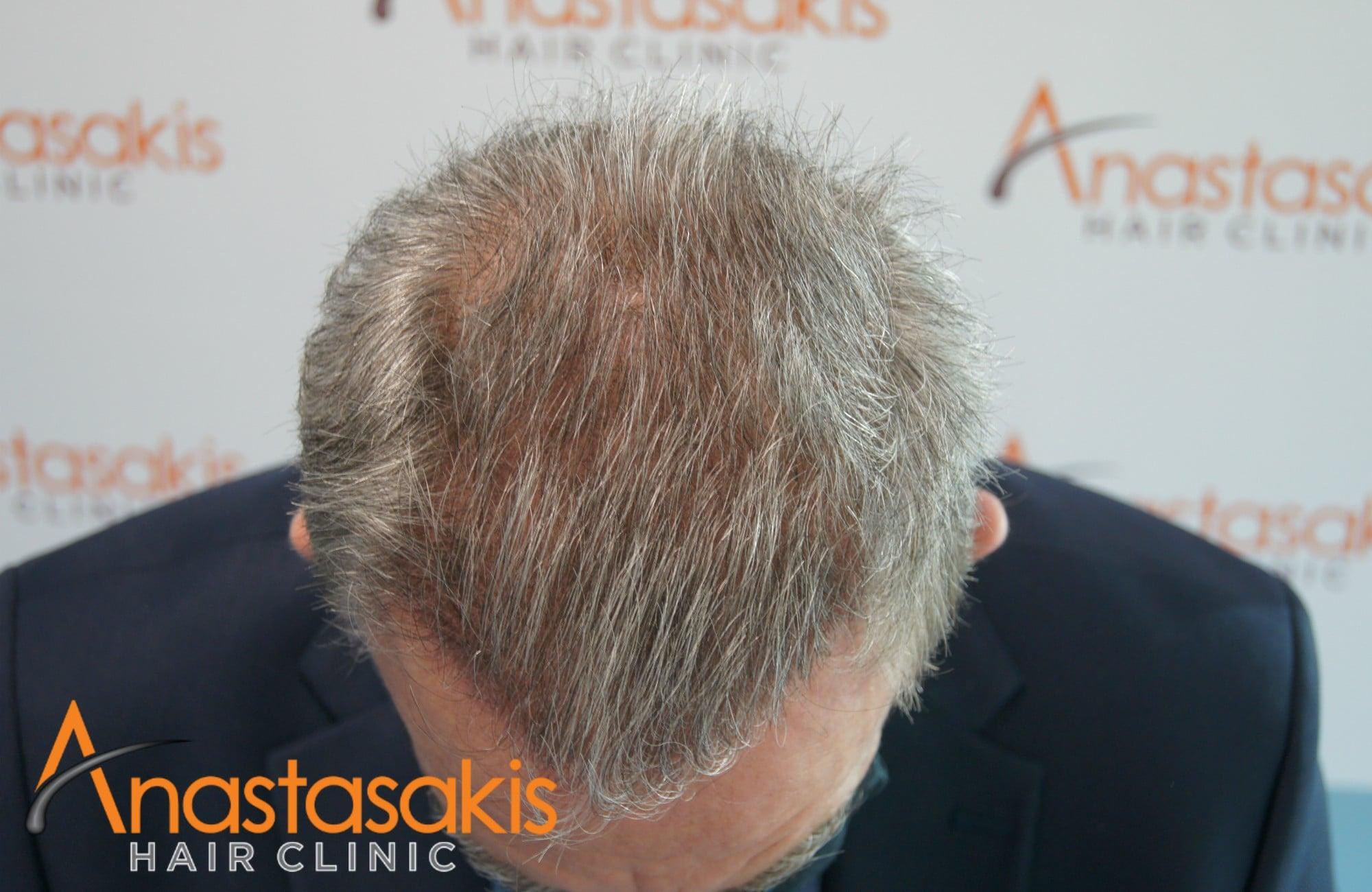 προσθια περιοχη ασθενους μετα τη μεταμοσχευση μαλλιων με 3650 fus
