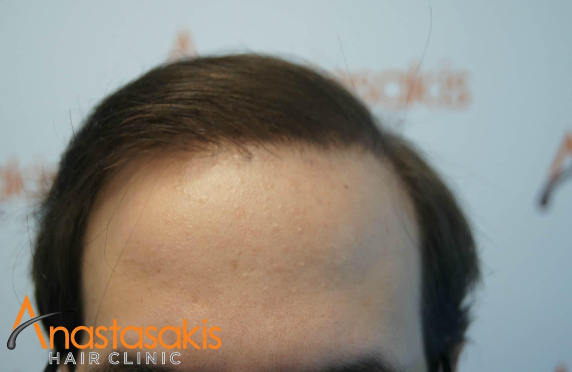 hairline ασθενους μετα τη μεταμοσχευση μαλλιων με 3500 fus