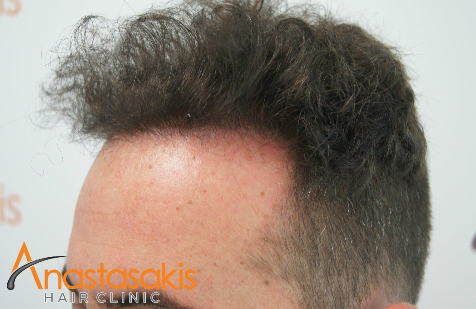 ασθενης μετα τη μεταμοσχευση μαλλιων με 2000fus δεξι προφιλ 2