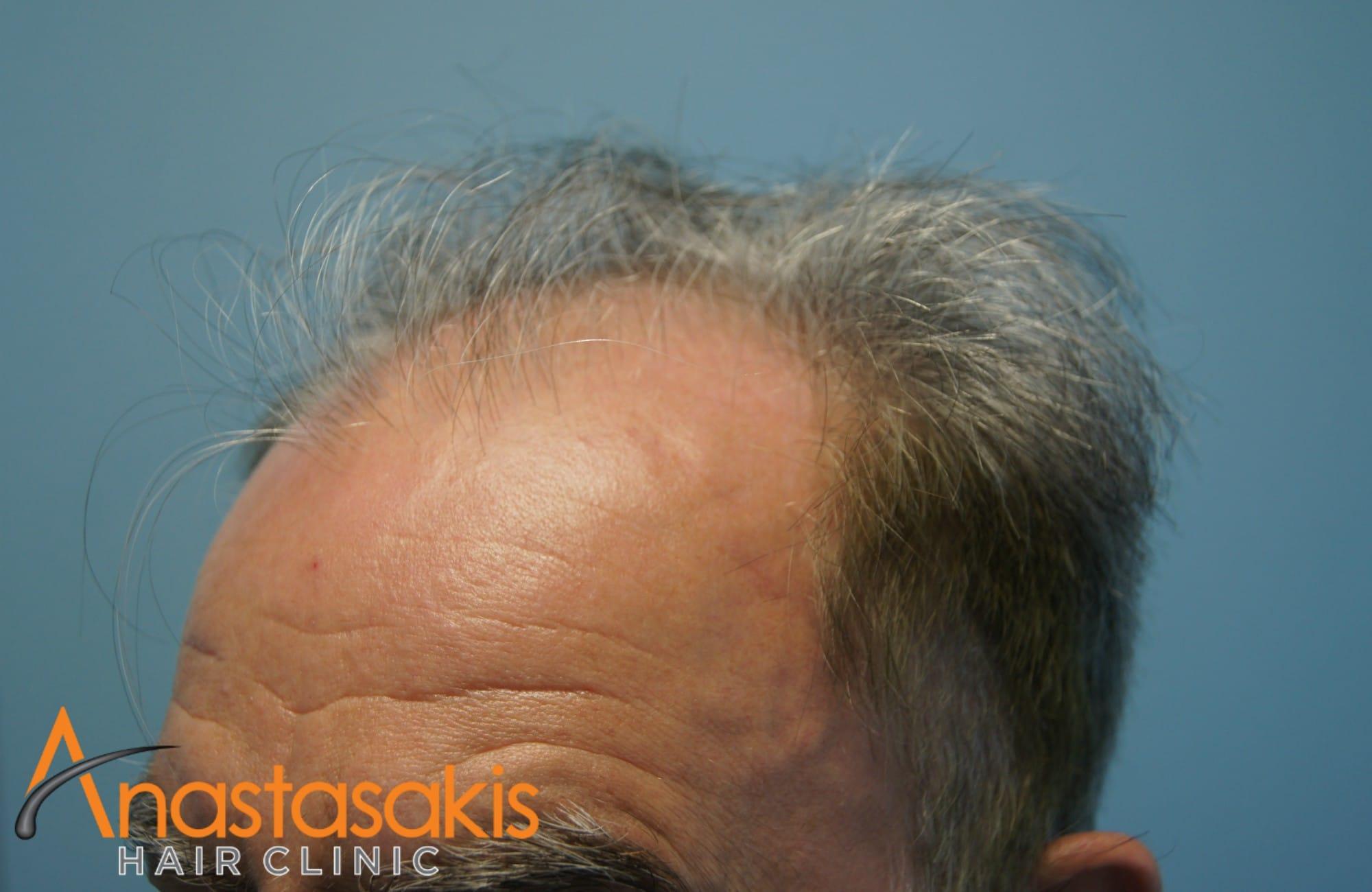 δεξι προφιλ 2 ασθενους πριν τη μεταμοσχευση μαλλιων με 3650 fus