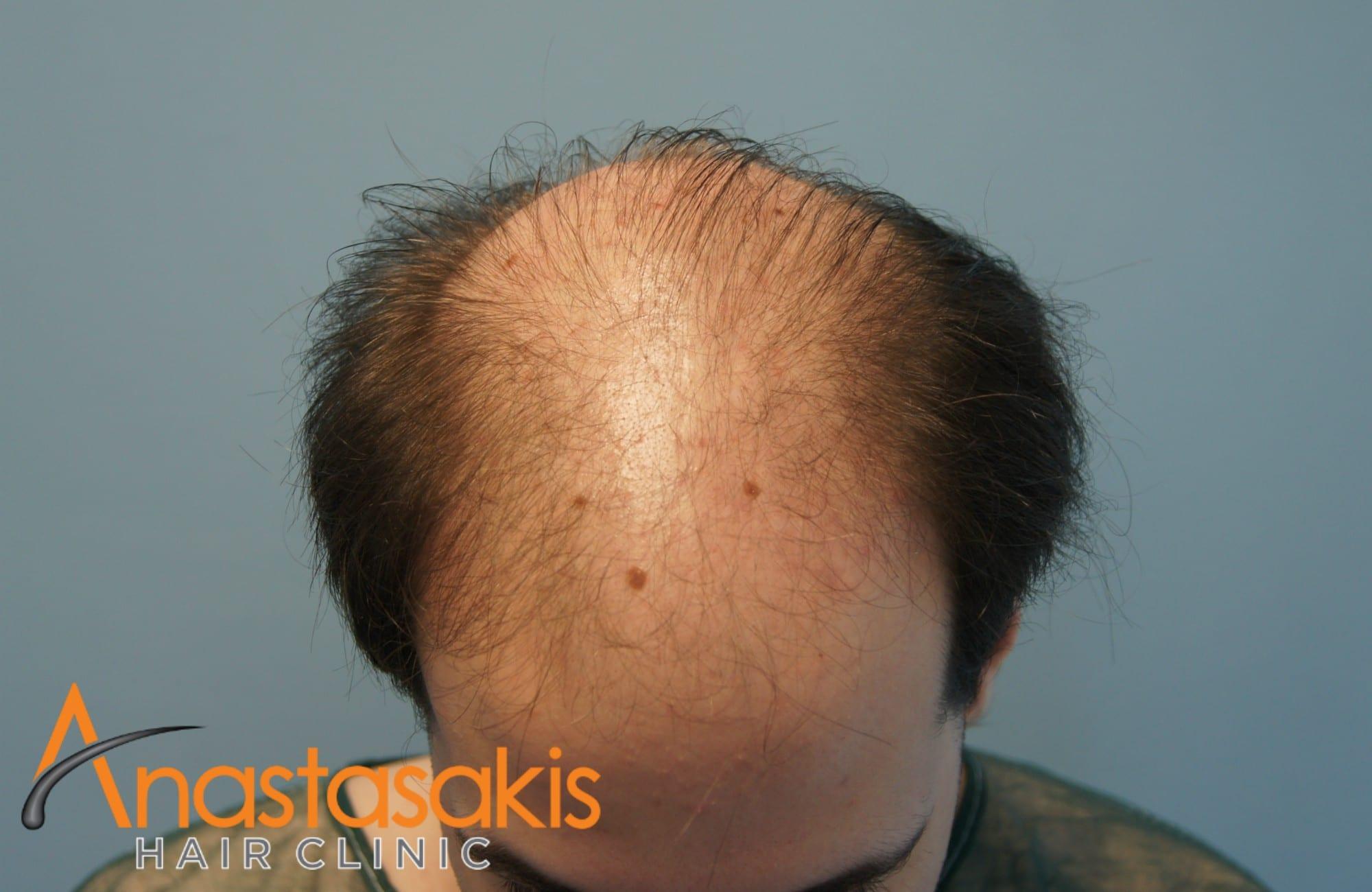 προσθια περιοχη ασθενους πριν τη μεταμοσχευση μαλλιων με 3500 fus