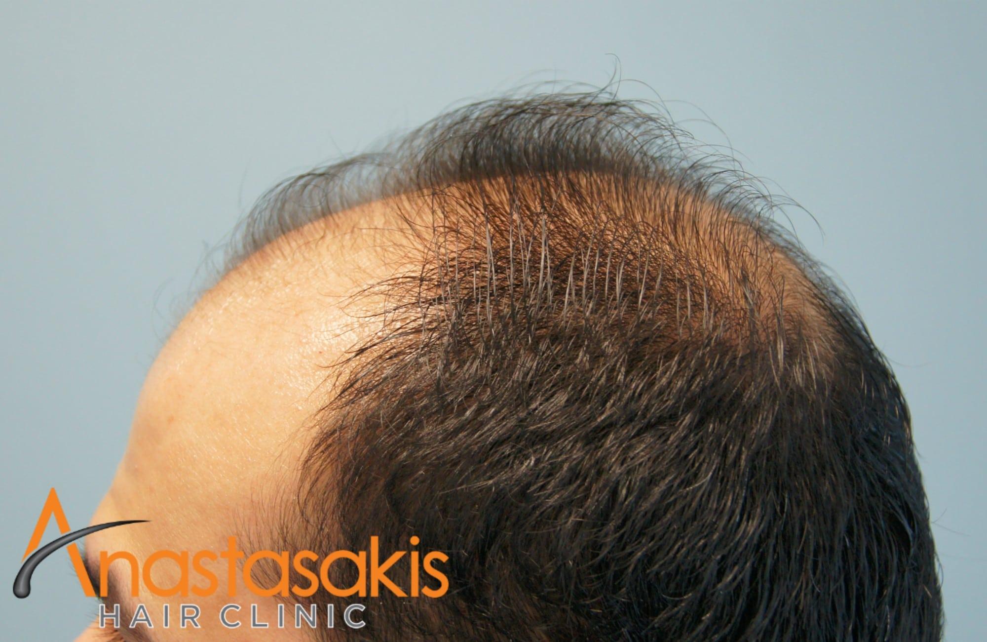 δεξι προφιλ ασθενους πριν τη μεταμοσχευση μαλλιων με 3000 fus