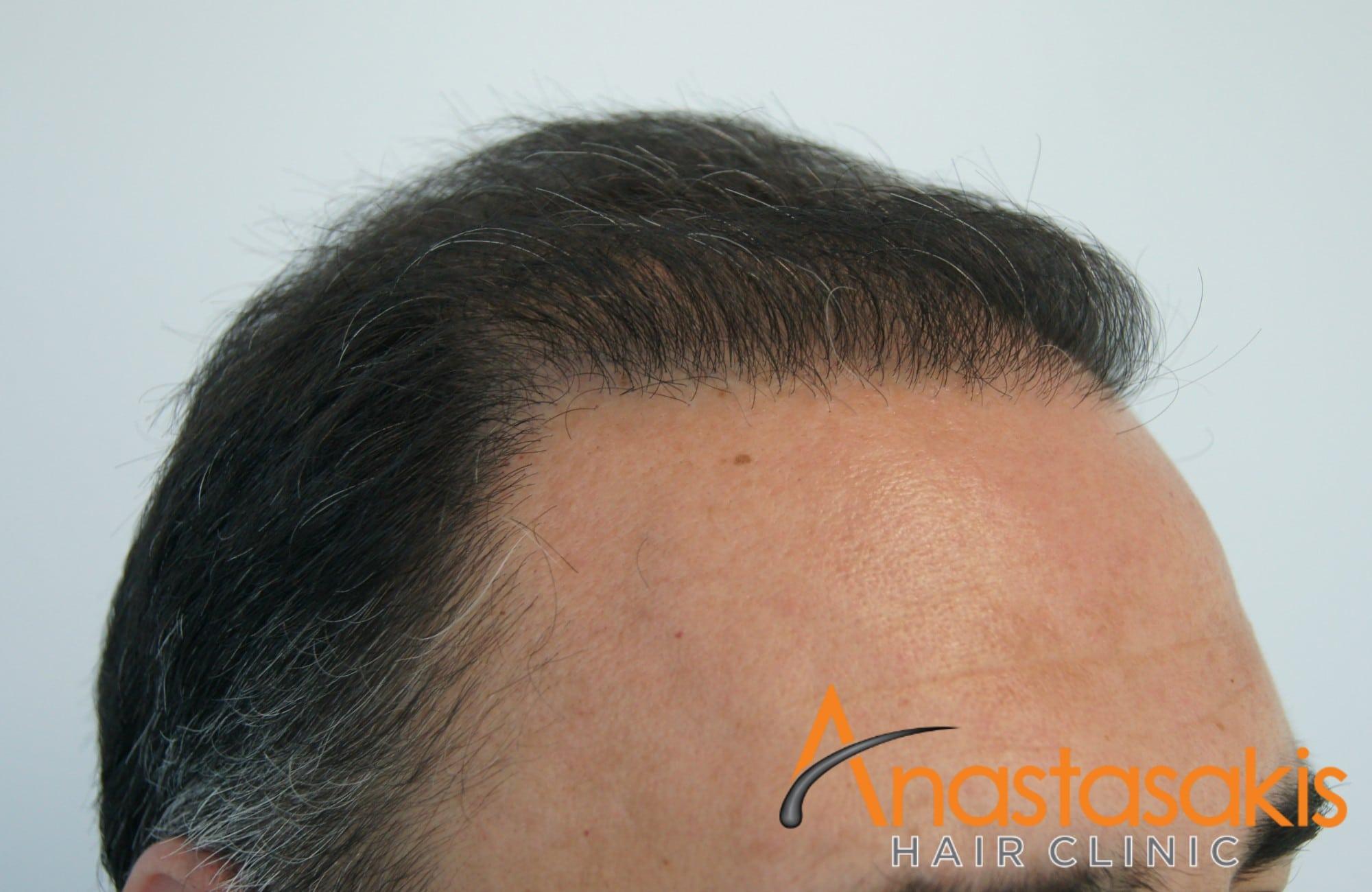 αριστερο προφιλ ασθενους μετα τη μεταμοσχευση μαλλιων με 3000 fus