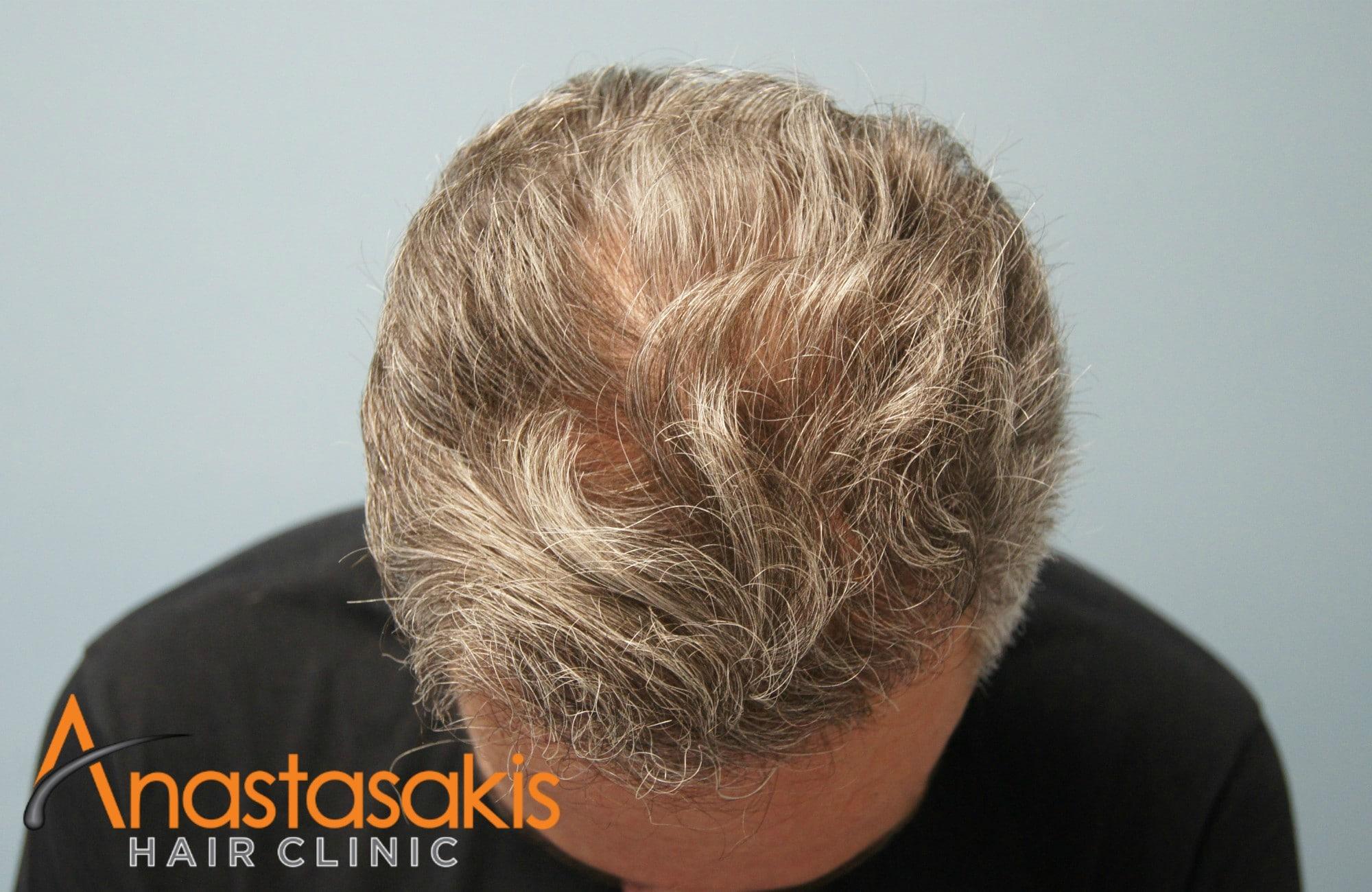 προσθια περιοχη ασθενους μετά τη μεταμοσχευση μαλλιων με 3500 fus