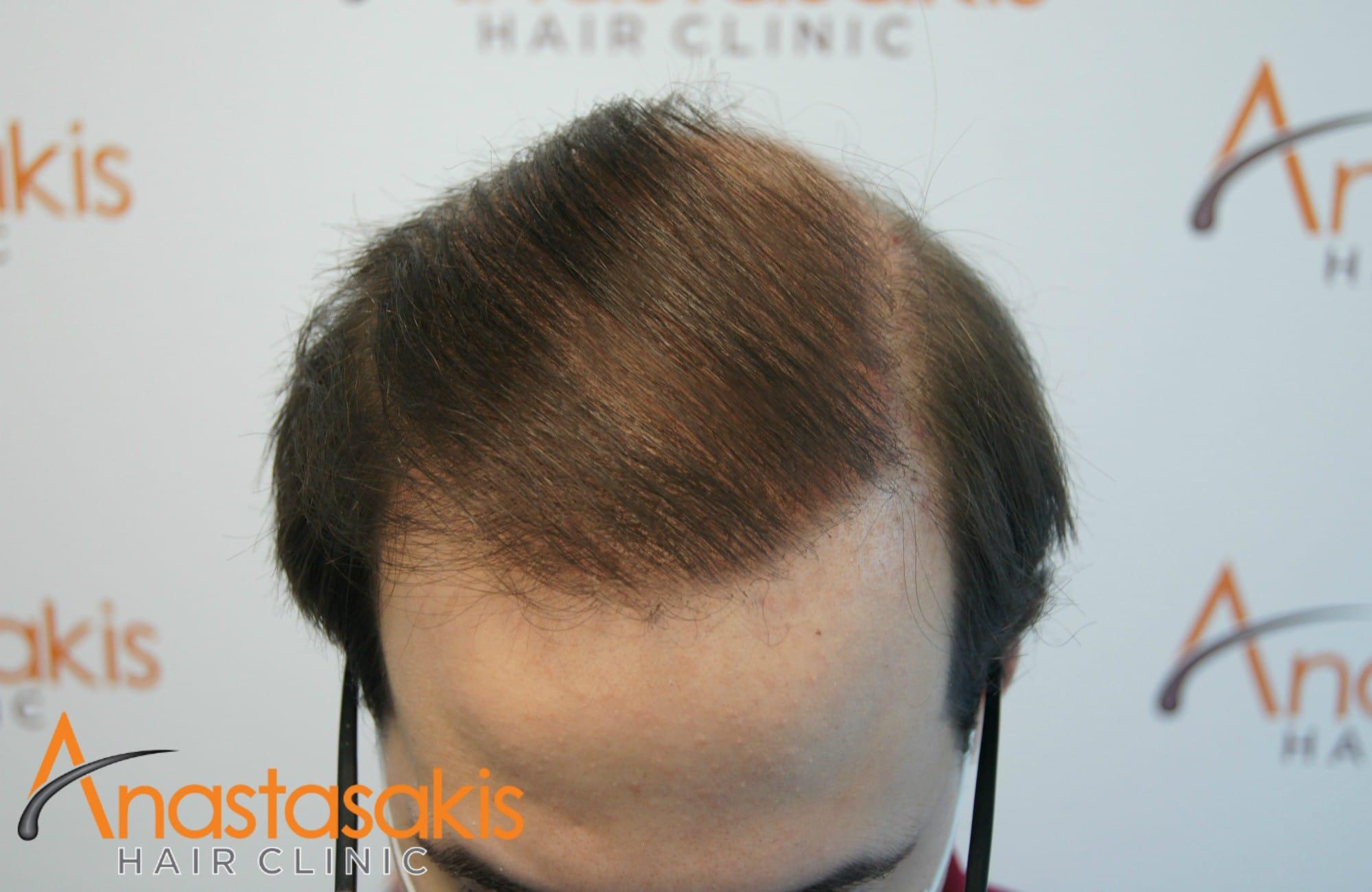 προσθια περιοχη ασθενους μετα τη μεταμοσχευση μαλλιων με 3500 fus