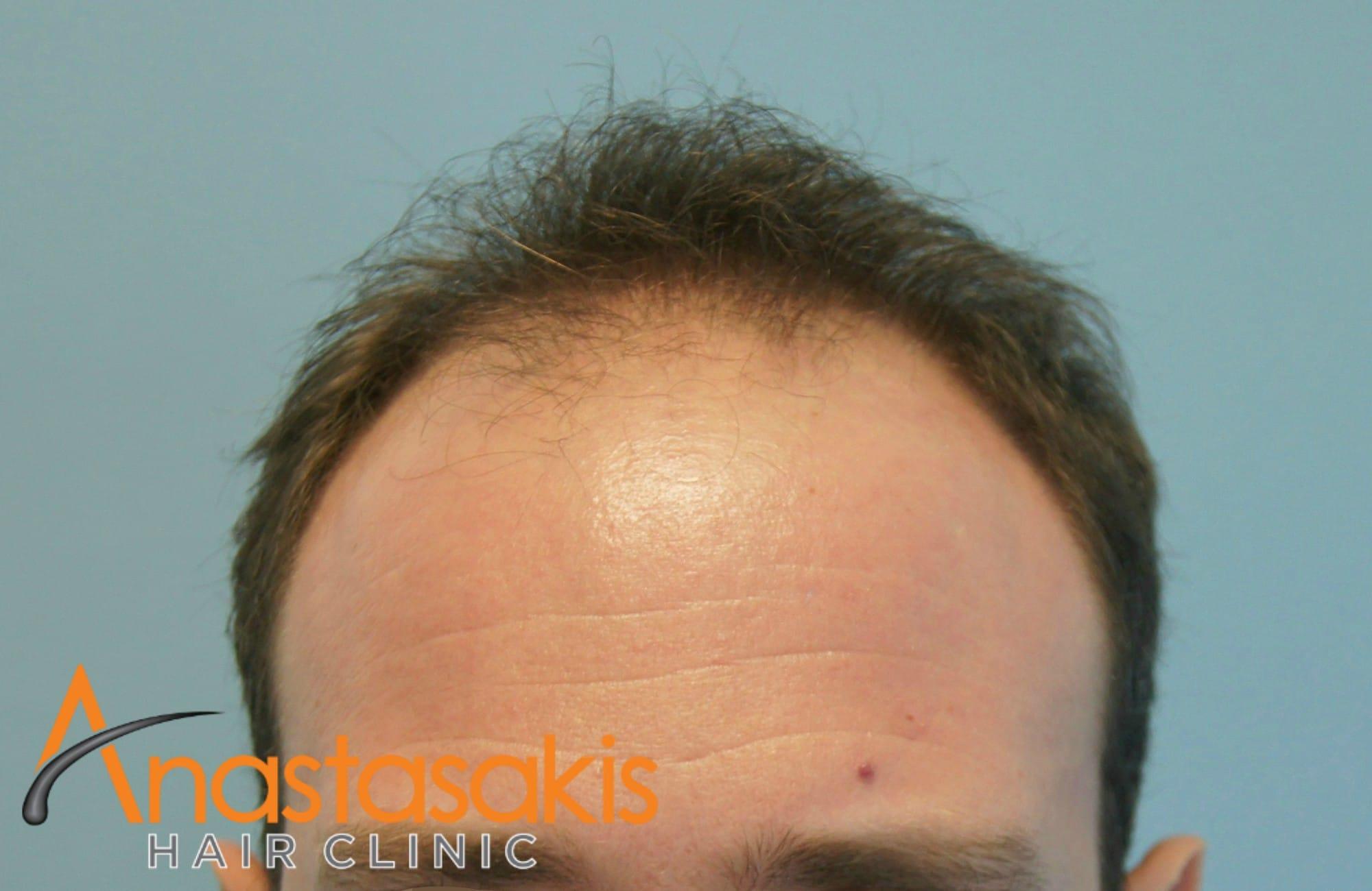 3000 fut result anastsakis hair clinic result