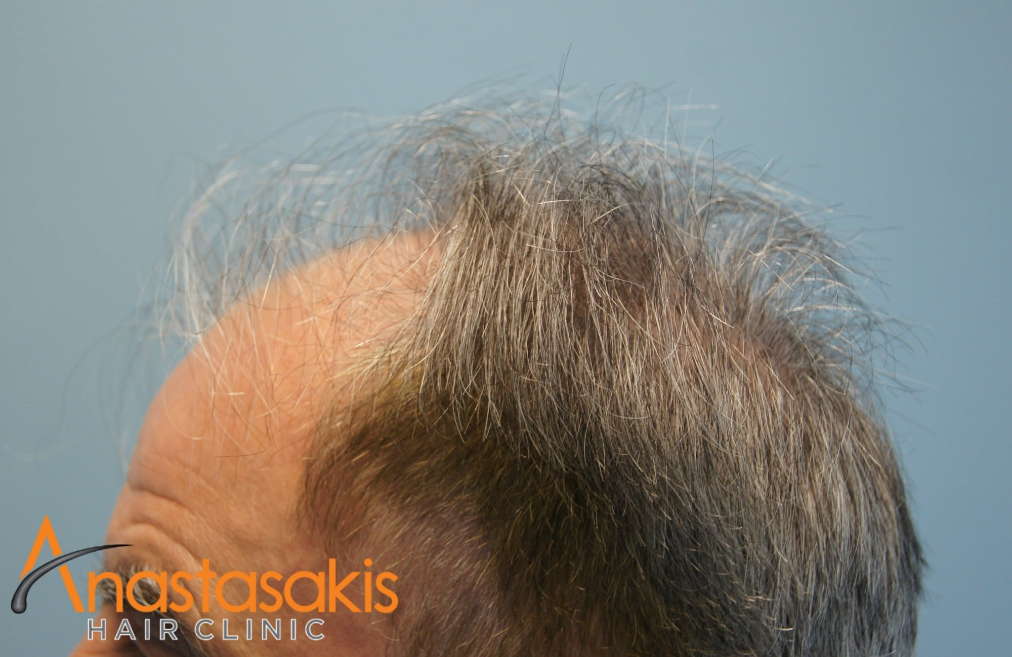 δεξι προφιλ ασθενους πριν τη μεταμοσχευση μαλλιων με 3650 fus