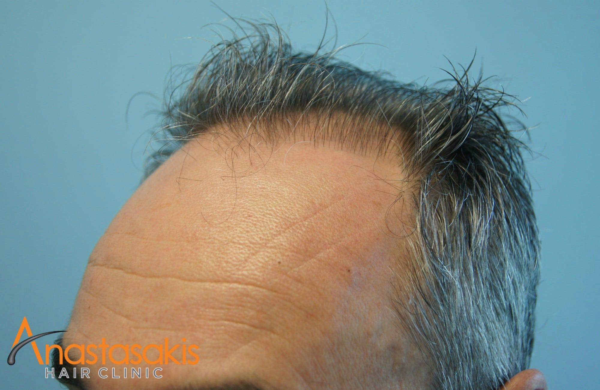 δεξί προφίλ 2 ασθενους πριν τη μεταμόσχευσή μαλλιών με 3500 fus