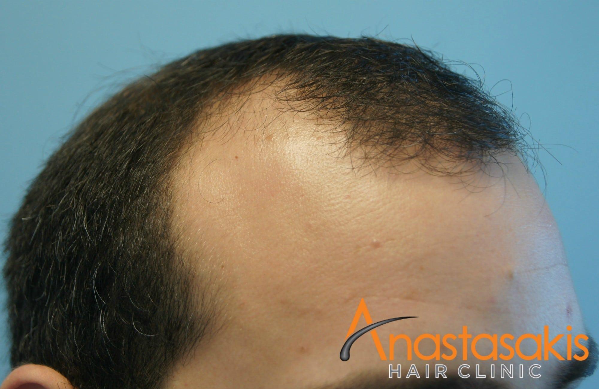 αριστερο προφιλ ασθενους πριν τη μεταμοσχευση μαλλιων με 1500 fus 2