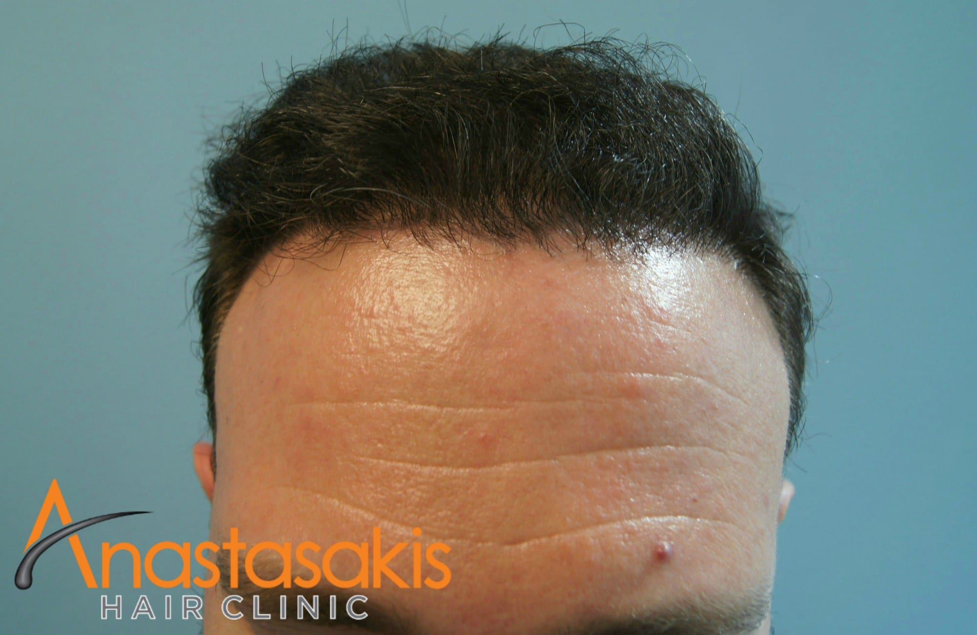 ανφας ασθενους μετα τη μεταμοσχευση μαλλιων με 3000 fus
