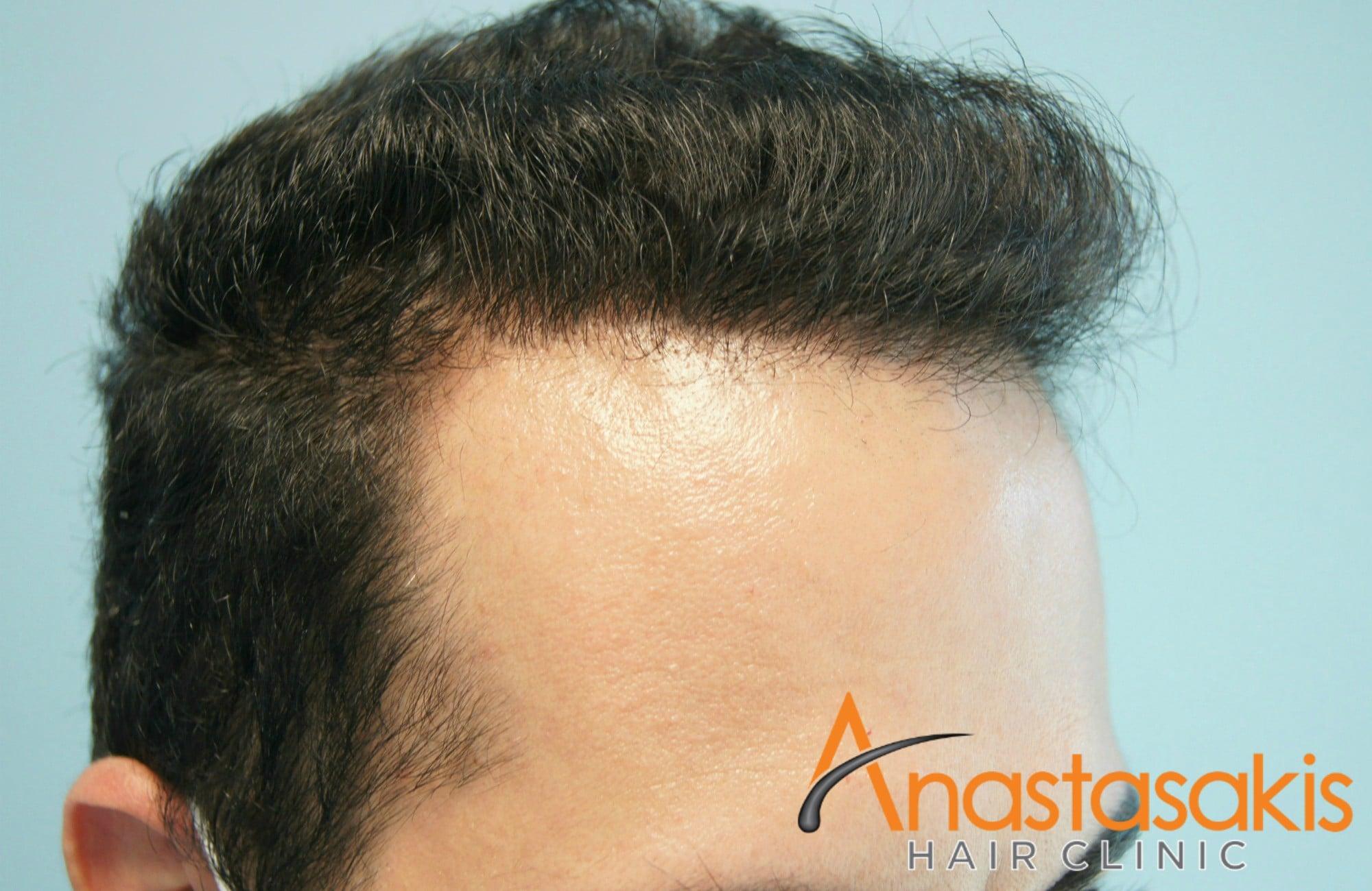 αριστερος κροταφος ασθενους μετα τη μεταμοσχευση μαλλιων με 1200 fus