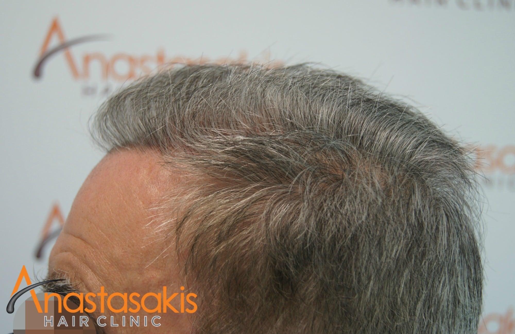 δεξι προφιλ ασθενους μετα τη μεταμοσχευση μαλλιων με 3650 fus