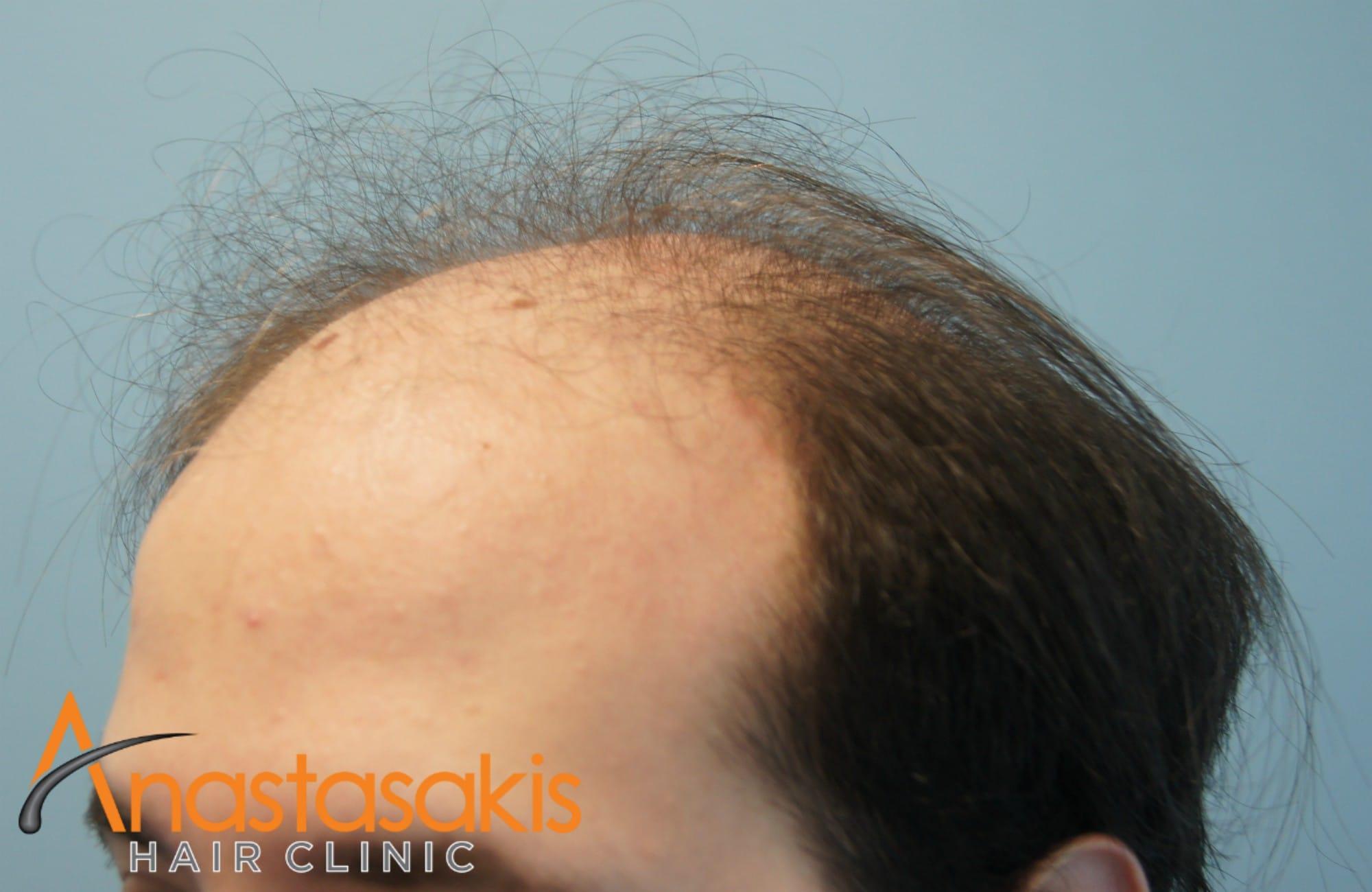 δεξι προφιλ ασθενους πριν τη μεταμοσχευση μαλλιων με 3500 fus