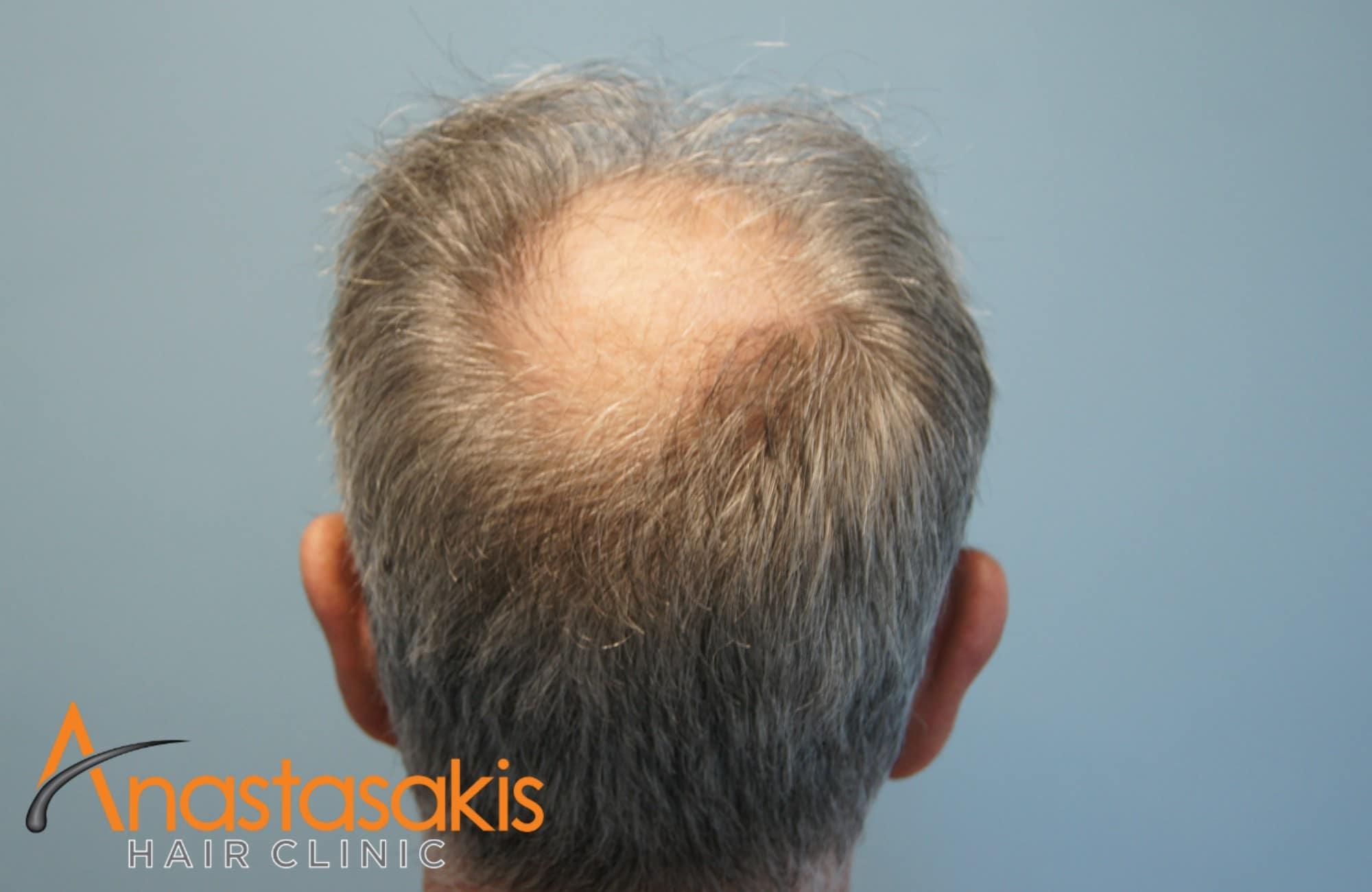 δοτρια περιοχη ασθενους πριν τη μεταμοσχευση μαλλιων με 3650 fus
