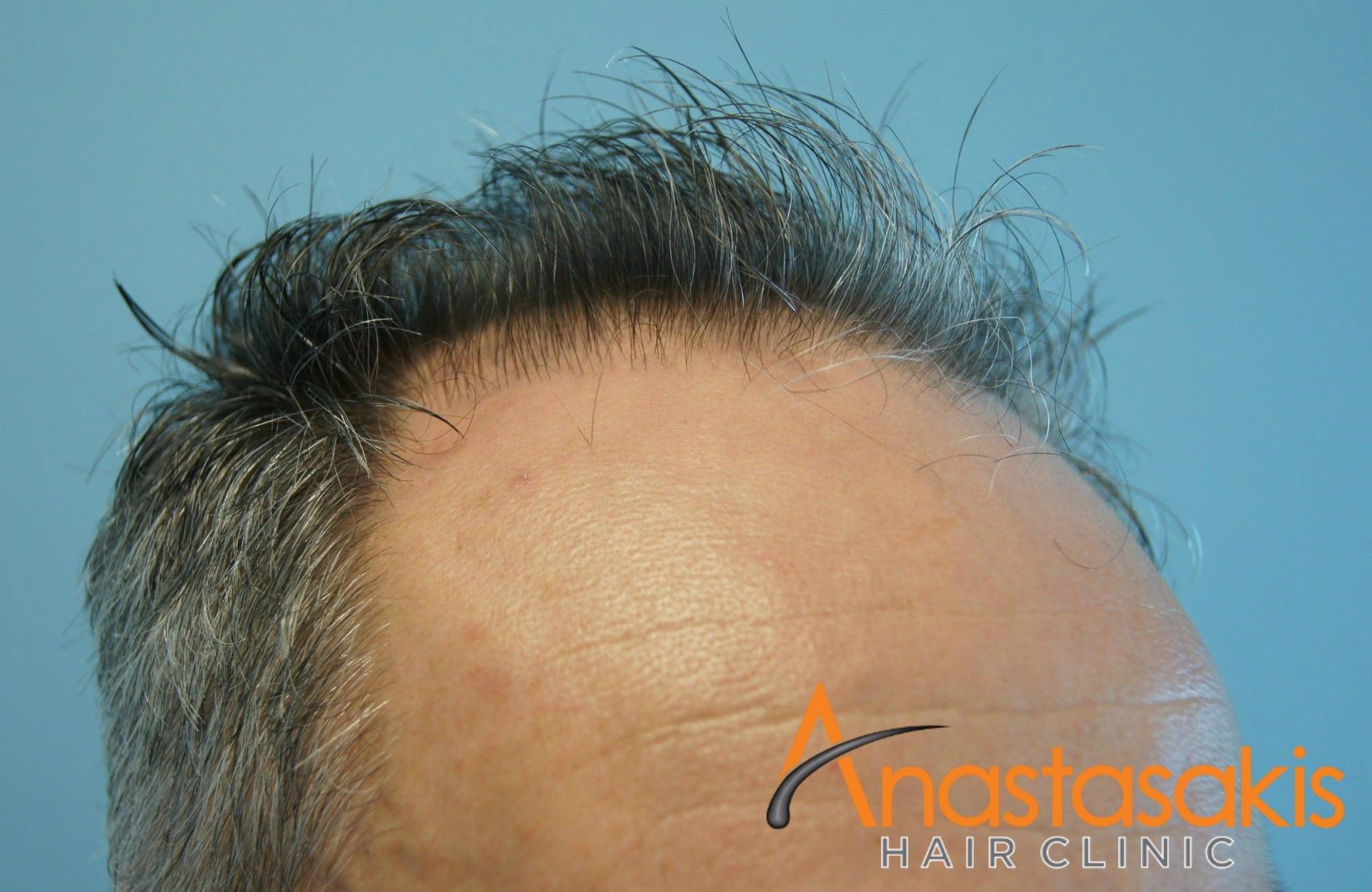 αριστερό προφίλ 2 ασθενους πριν τη μεταμόσχευσή μαλλιών με 3500 fus