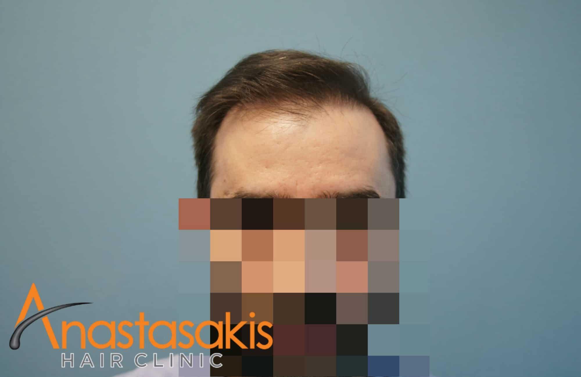 μετα τη μεταμοσχευση μαλλιων με 2500 fus full face