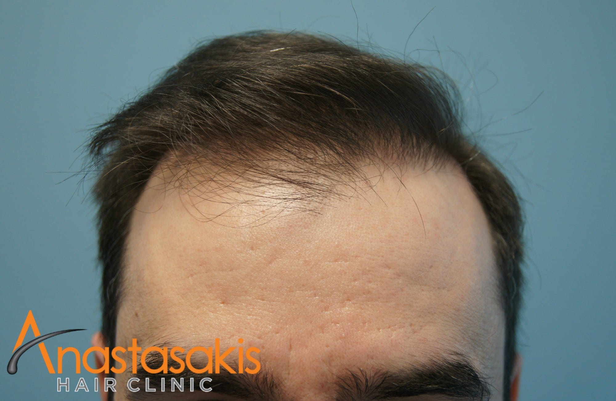 ανφας ασθενους μετα τη μεταμοσχευση μαλλιων με 2500fus